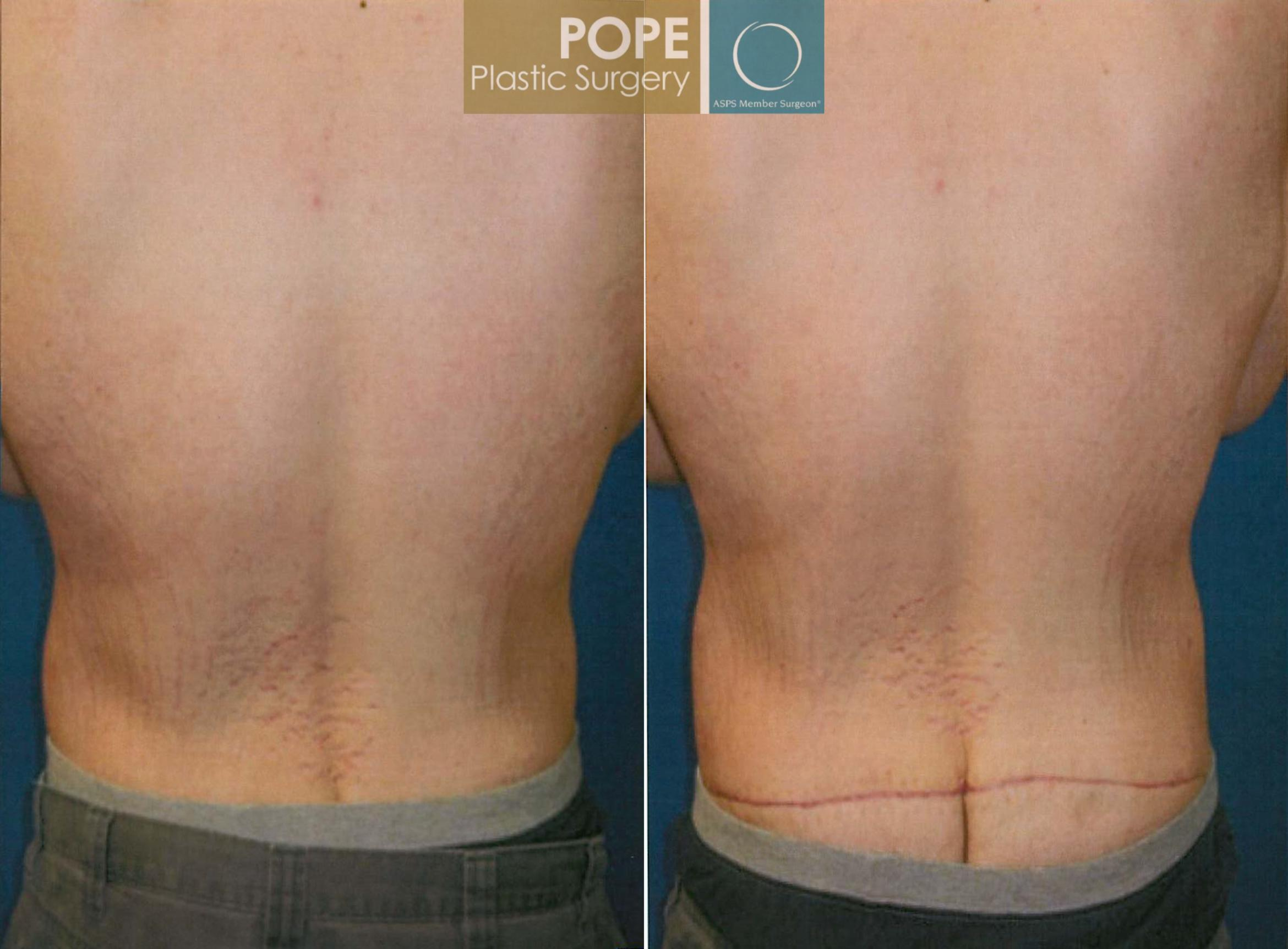 Body Lift Case 183 Before & After View #1 | Orlando, FL | Pope Plastic Surgery