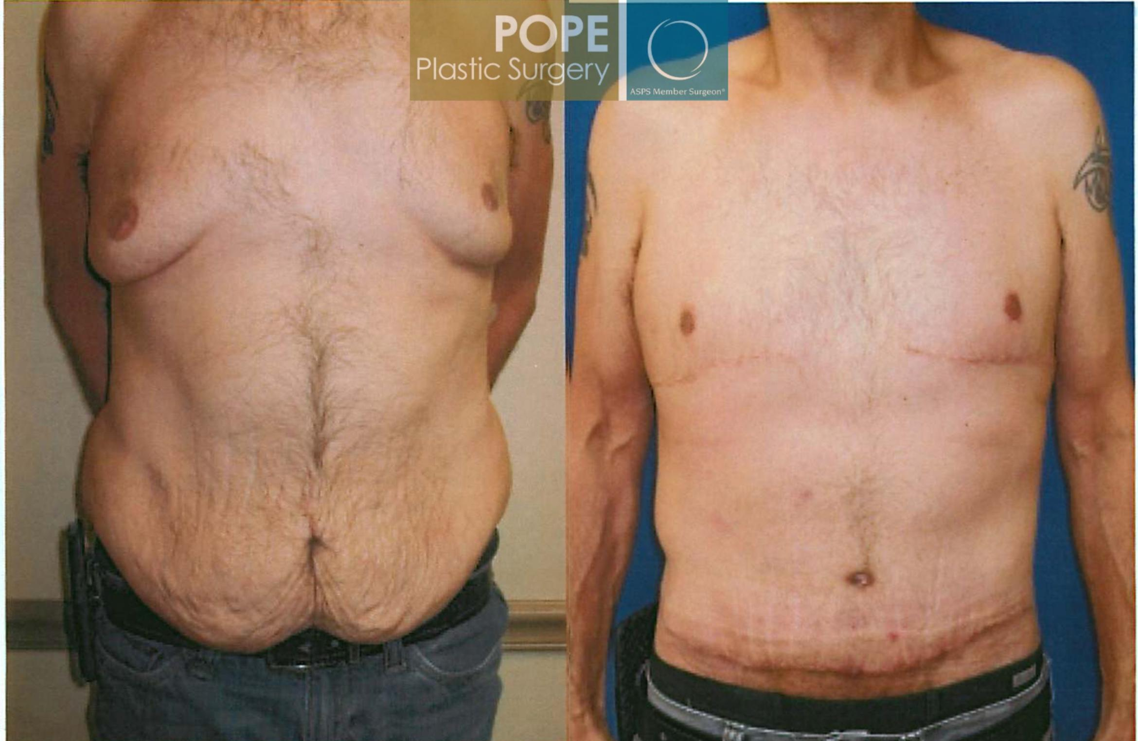 Body Lift Case 93 Before & After View #1 | Orlando, FL | Pope Plastic Surgery