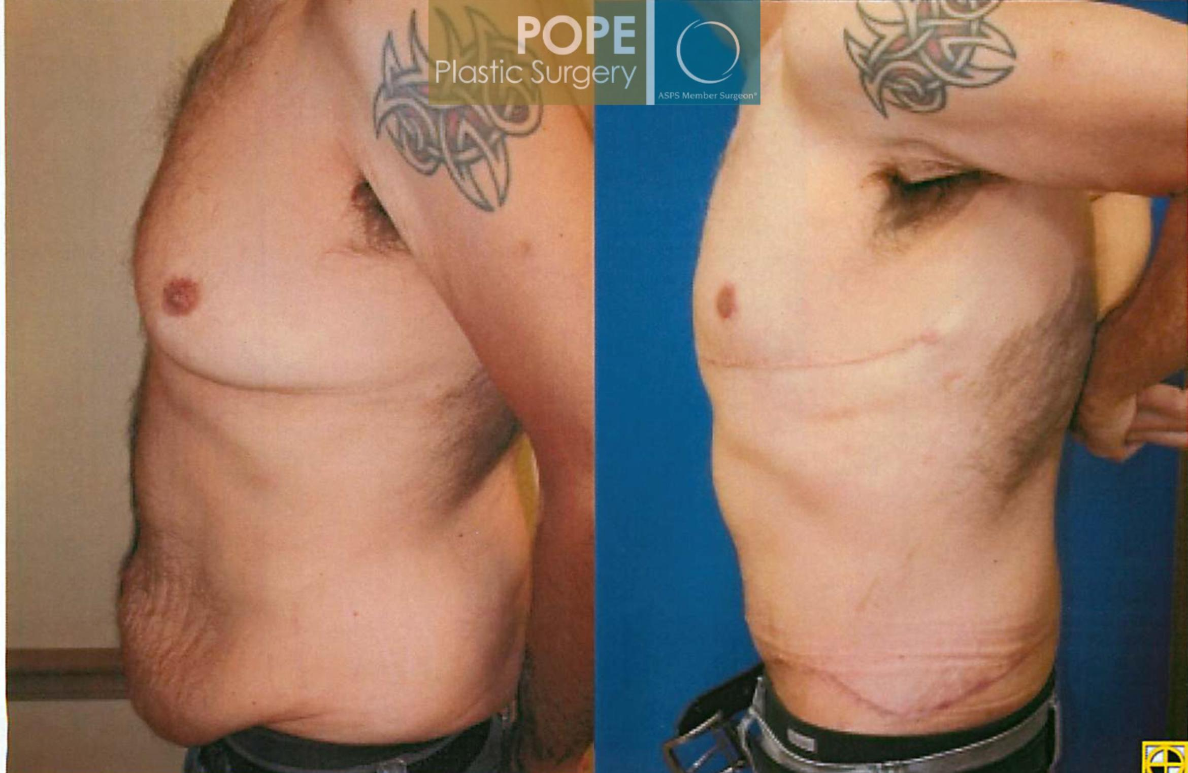Body Lift Case 93 Before & After View #2 | Orlando, FL | Pope Plastic Surgery
