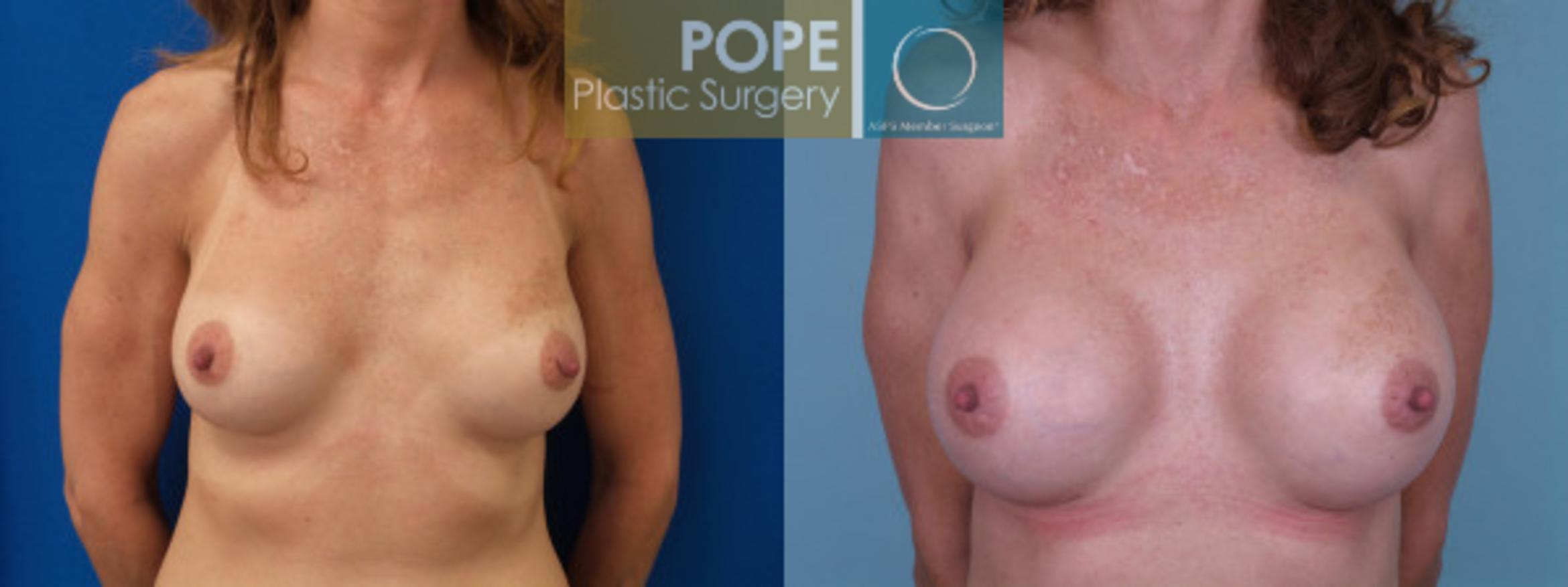 Breast Augmentation Case 125 Before & After View #1 | Orlando, FL | Pope Plastic Surgery