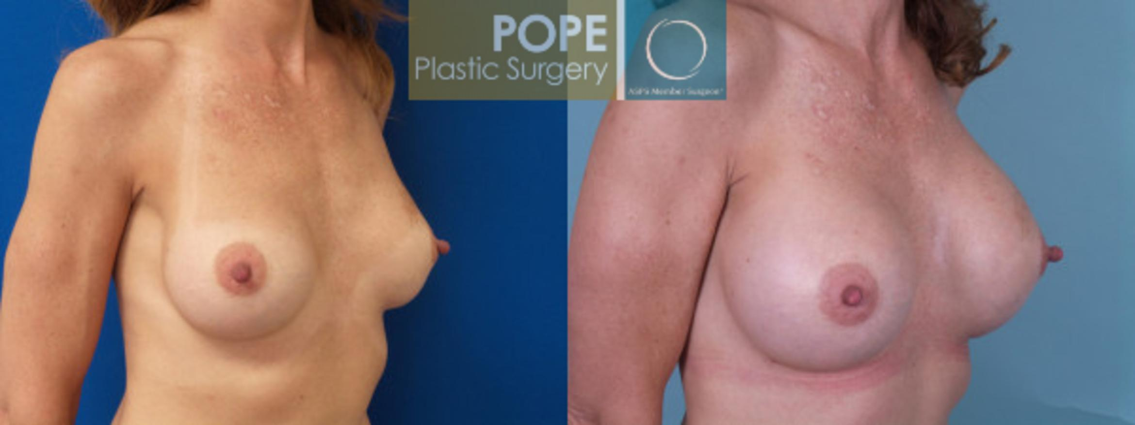 Breast Augmentation Case 125 Before & After View #2 | Orlando, FL | Pope Plastic Surgery