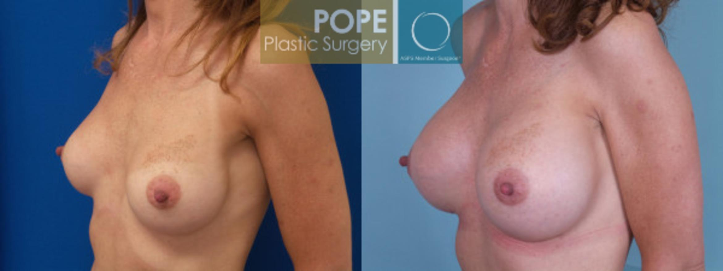 Breast Augmentation Case 125 Before & After View #3 | Orlando, FL | Pope Plastic Surgery