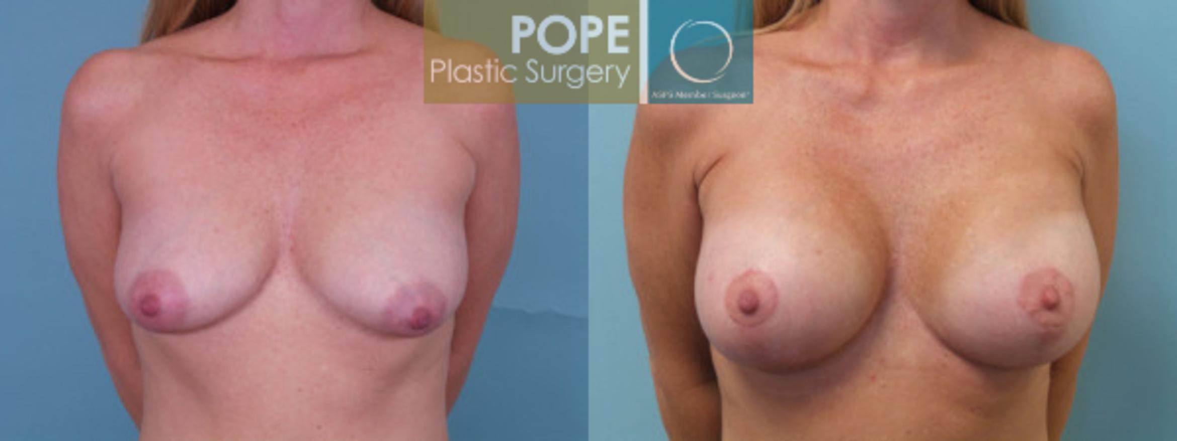 Breast Augmentation Case 35 Before & After View #1 | Orlando, FL | Pope Plastic Surgery