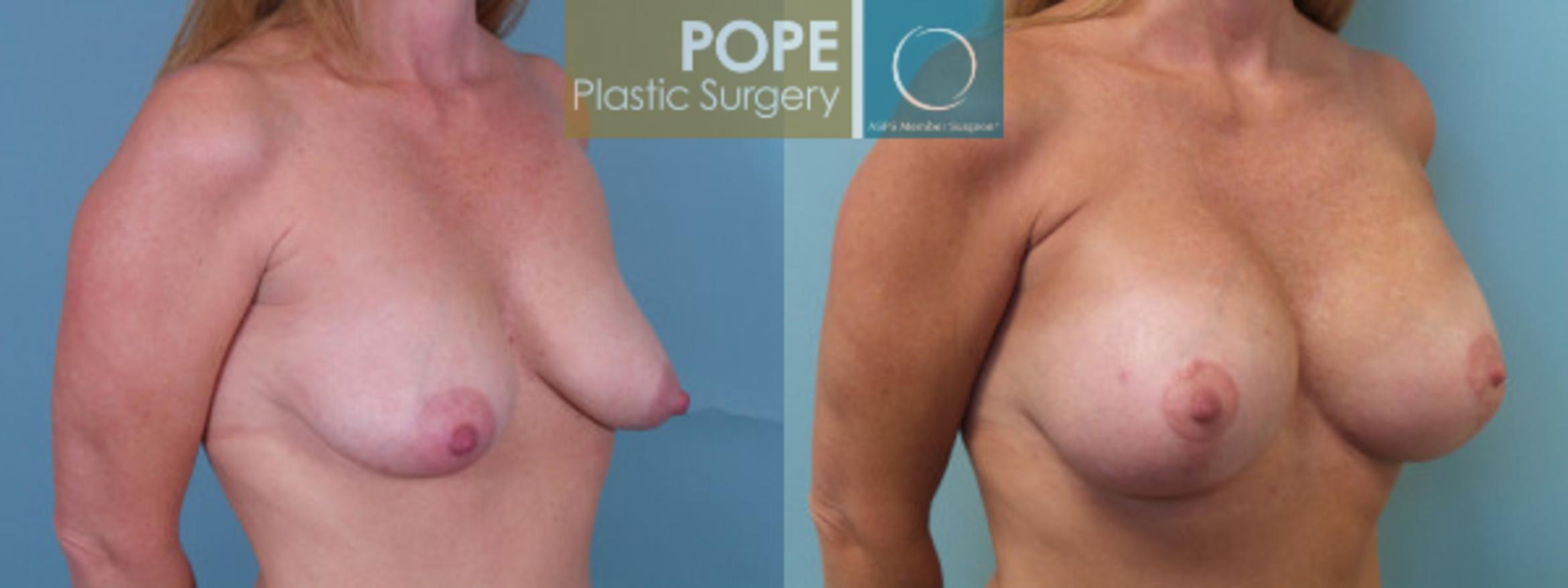 Breast Augmentation Case 35 Before & After View #2 | Orlando, FL | Pope Plastic Surgery