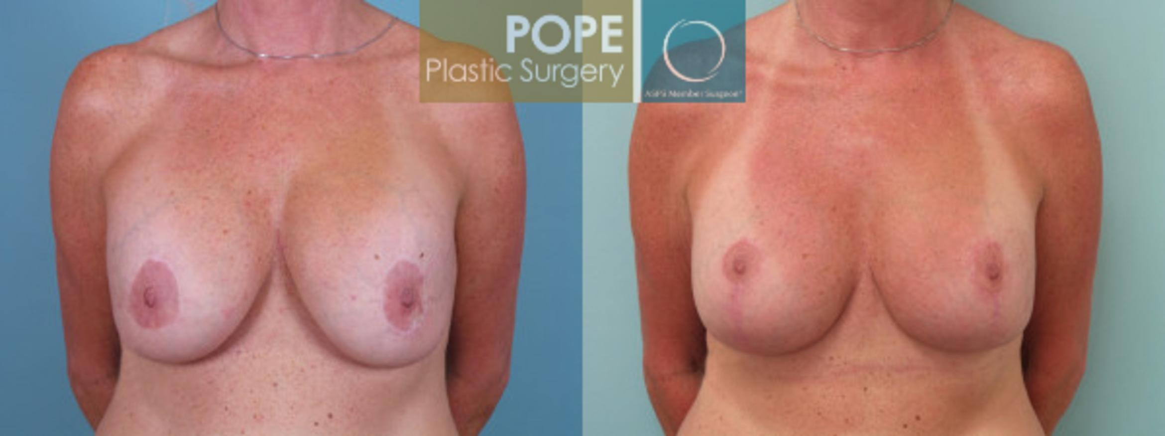 Breast Lift Case 41 Before & After View #1 | Orlando, FL | Pope Plastic Surgery