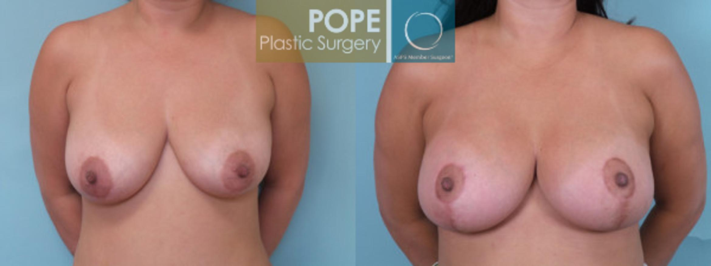 Breast Lift Case 65 Before & After View #1 | Orlando, FL | Pope Plastic Surgery