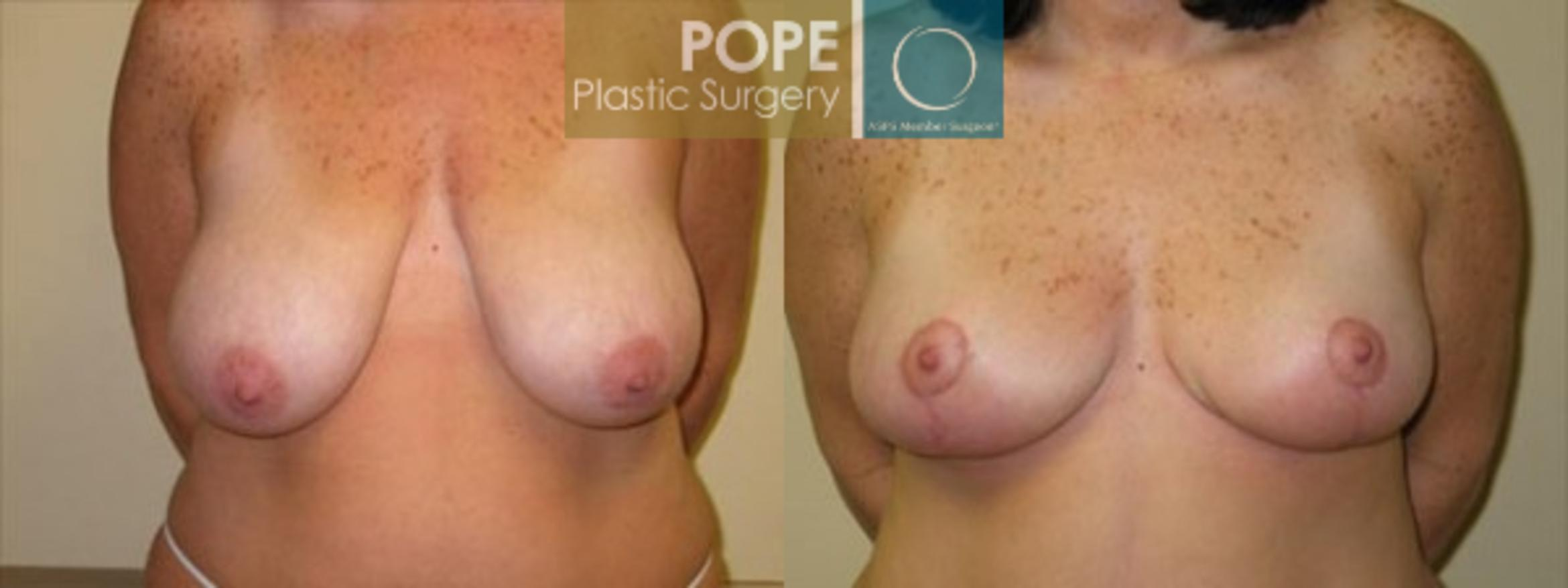 Breast Reduction Case 134 Before & After View #1 | Orlando, FL | Pope Plastic Surgery