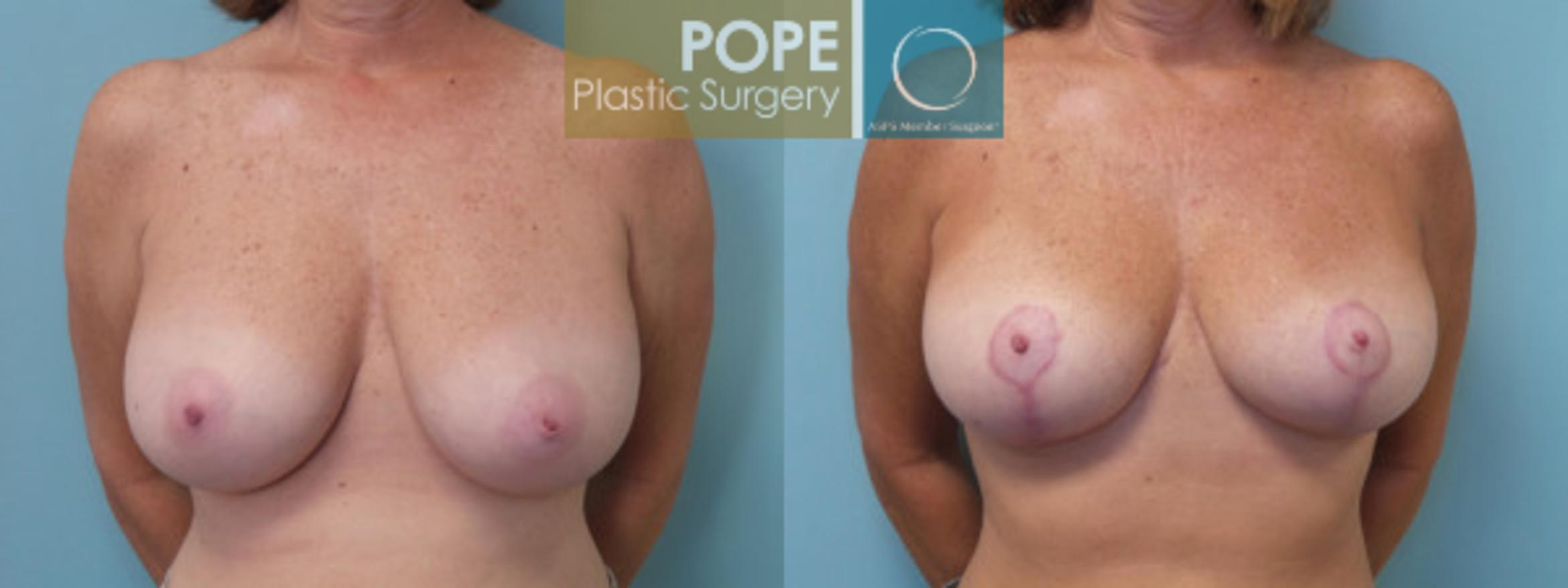 Breast Reduction Case 45 Before & After View #1 | Orlando, FL | Pope Plastic Surgery