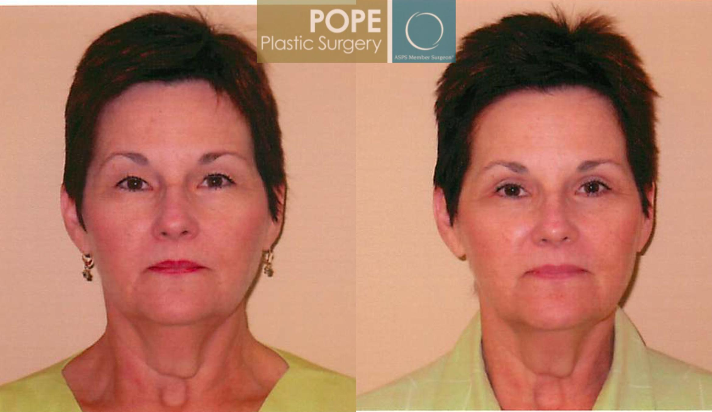 Eyelid Surgery Case 106 Before & After View #1 | Orlando, FL | Pope Plastic Surgery