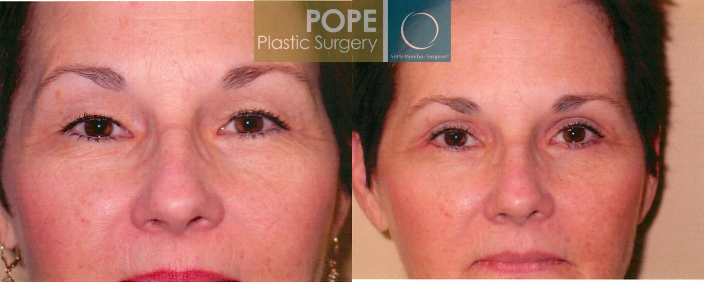 Eyelid Surgery Case 106 Before & After View #2 | Orlando, FL | Pope Plastic Surgery