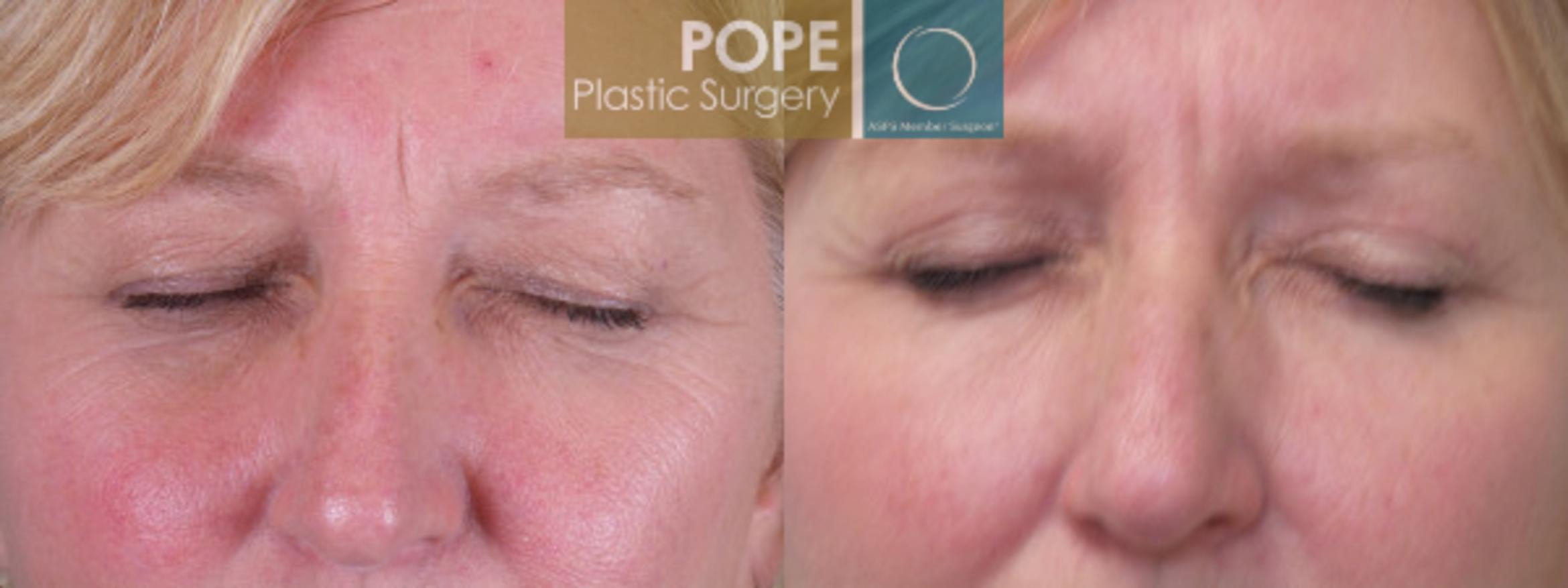 Eyelid Surgery Case 141 Before & After View #1 | Orlando, FL | Pope Plastic Surgery