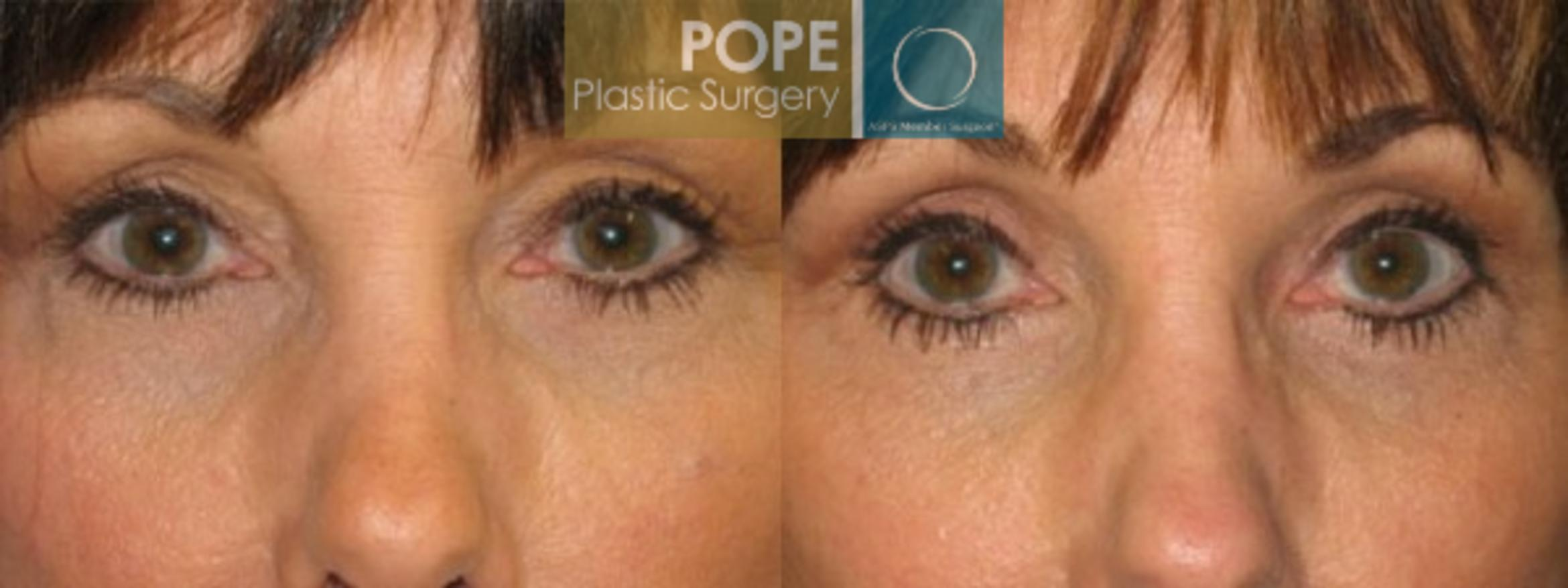 Eyelid Surgery Case 26 Before & After View #1 | Orlando, FL | Pope Plastic Surgery