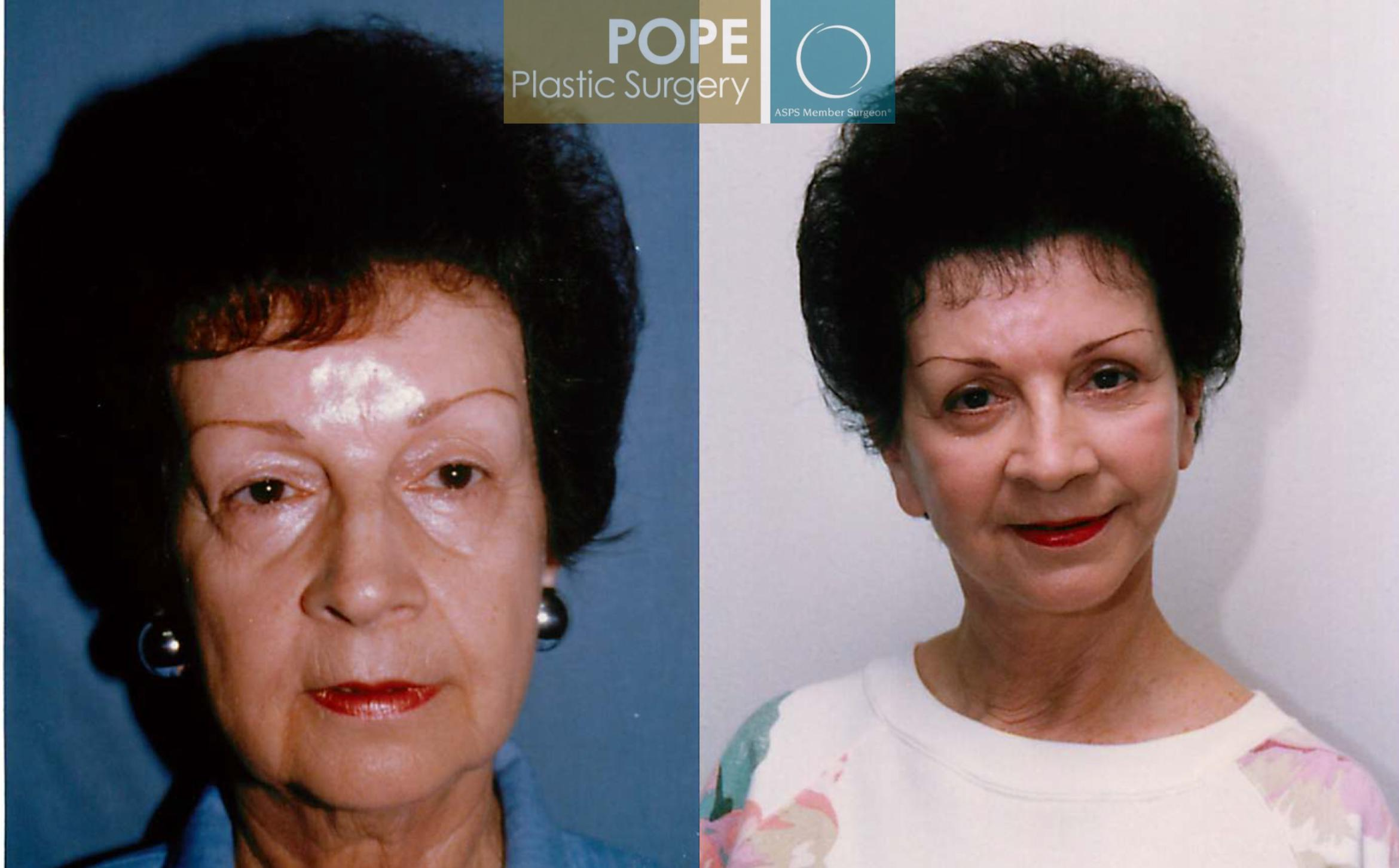 Facelift Case 103 Before & After View #1 | Orlando, FL | Pope Plastic Surgery