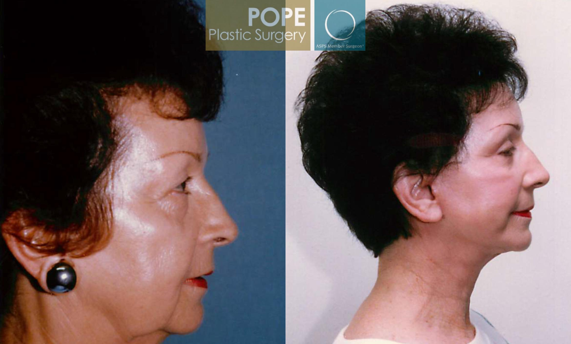 Facelift Case 103 Before & After View #2 | Orlando, FL | Pope Plastic Surgery