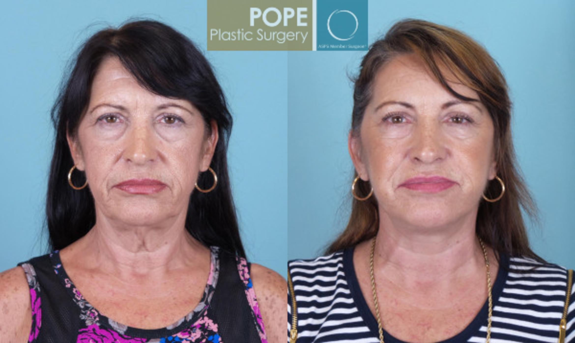 Facelift Case 19 Before & After View #1 | Orlando, FL | Pope Plastic Surgery