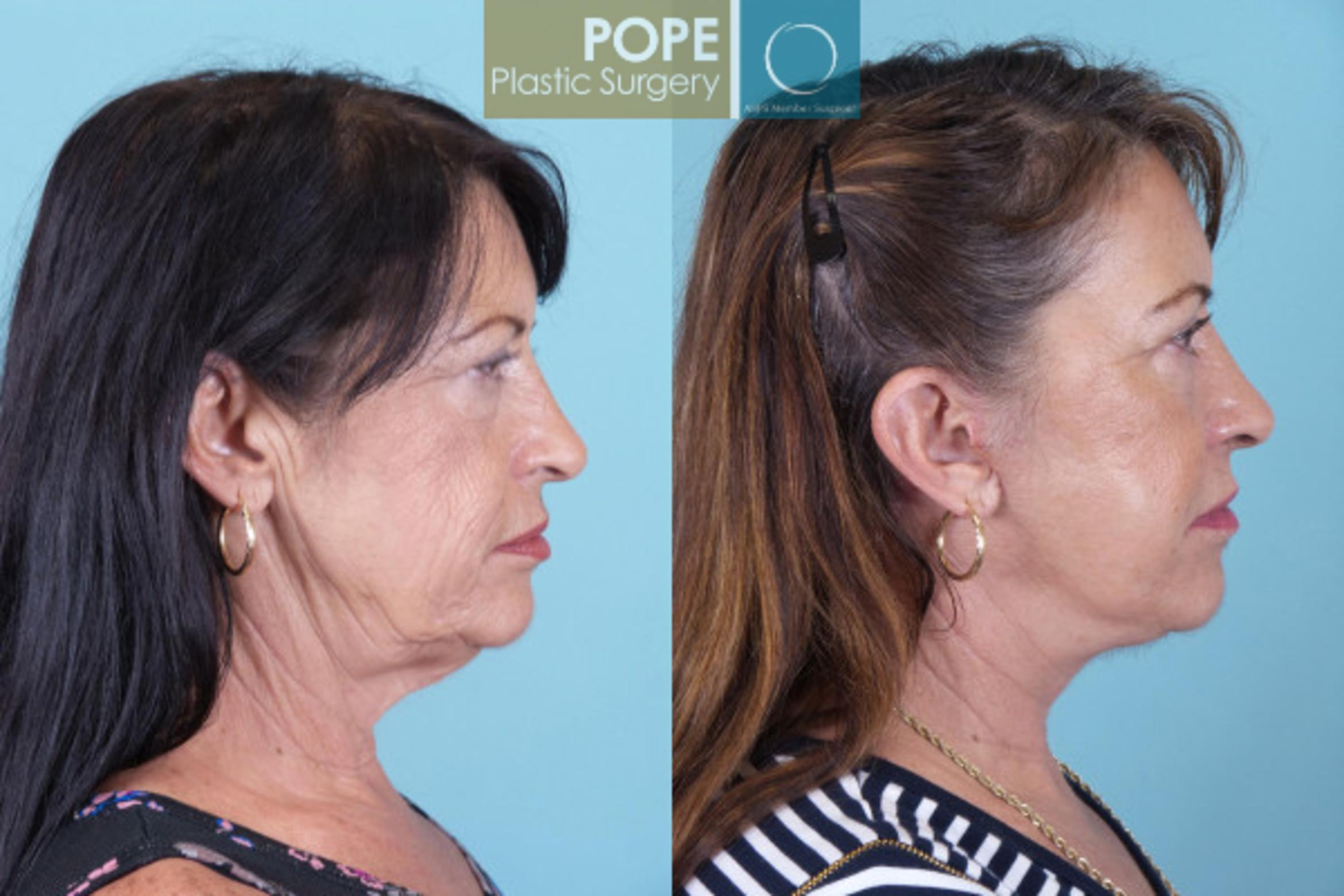 Facelift Case 19 Before & After View #2 | Orlando, FL | Pope Plastic Surgery