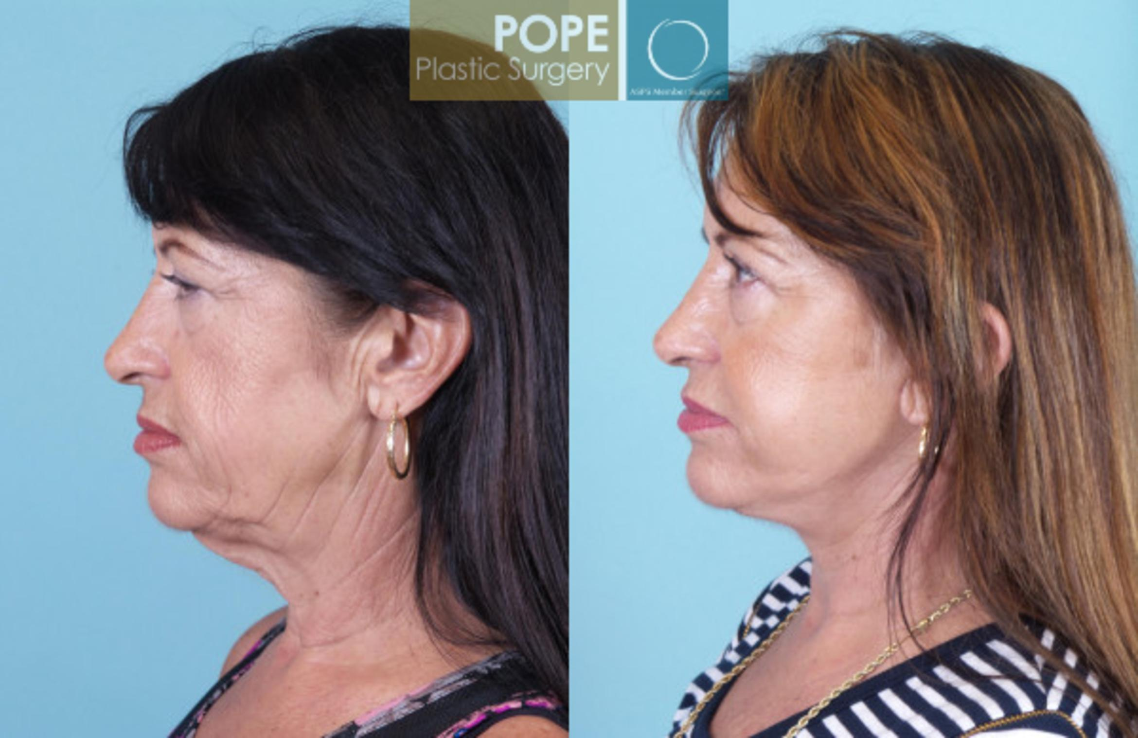 Facelift Case 19 Before & After View #3 | Orlando, FL | Pope Plastic Surgery