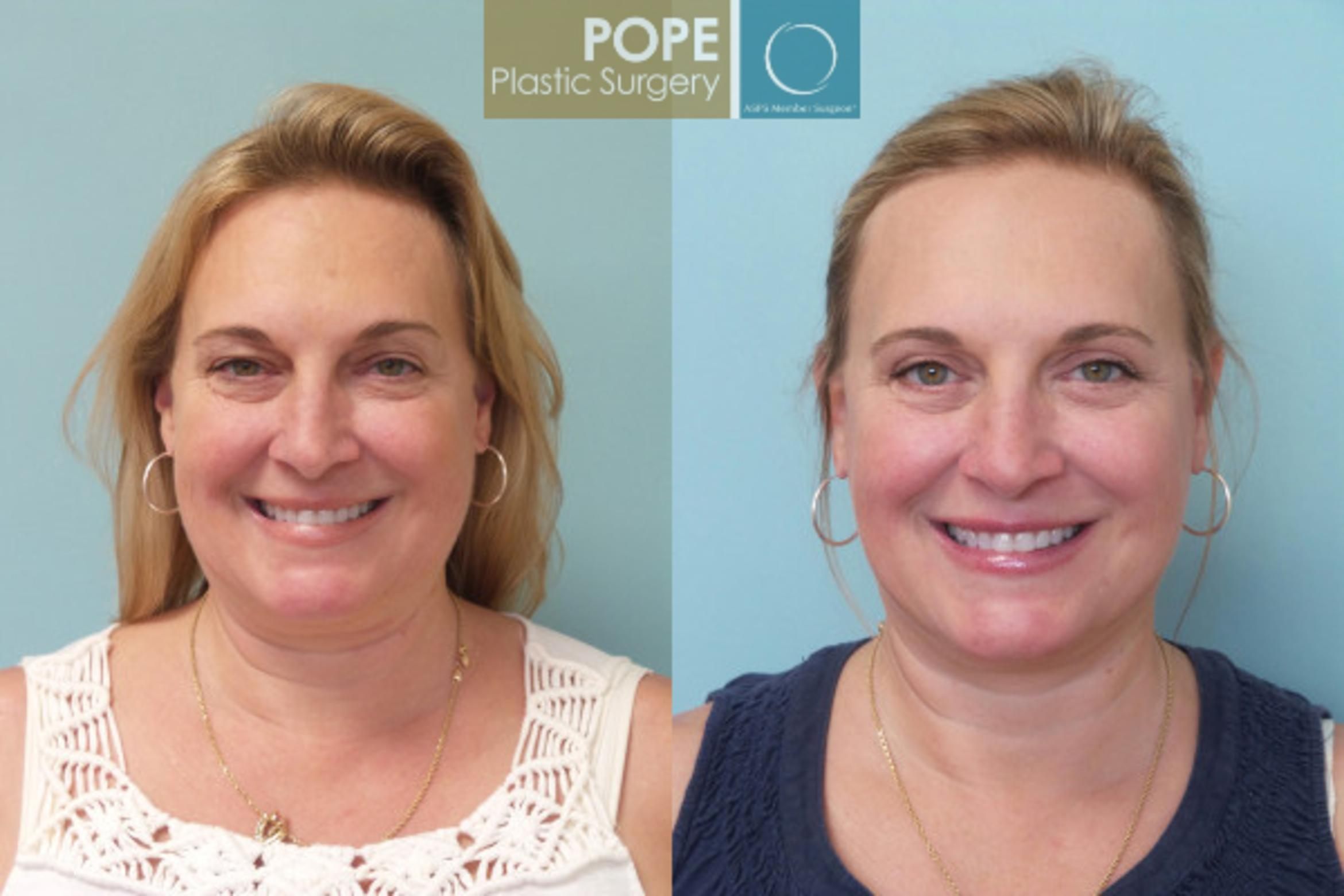 Facelift Case 20 Before & After View #1 | Orlando, FL | Pope Plastic Surgery