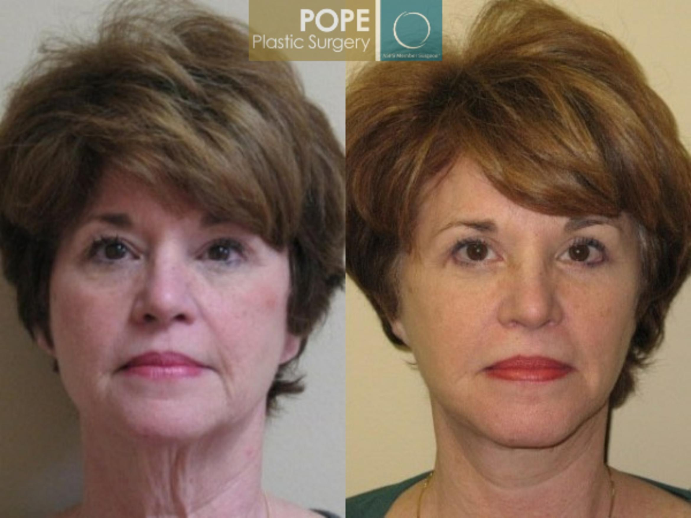 Facelift Case 71 Before & After View #1 | Orlando, FL | Pope Plastic Surgery