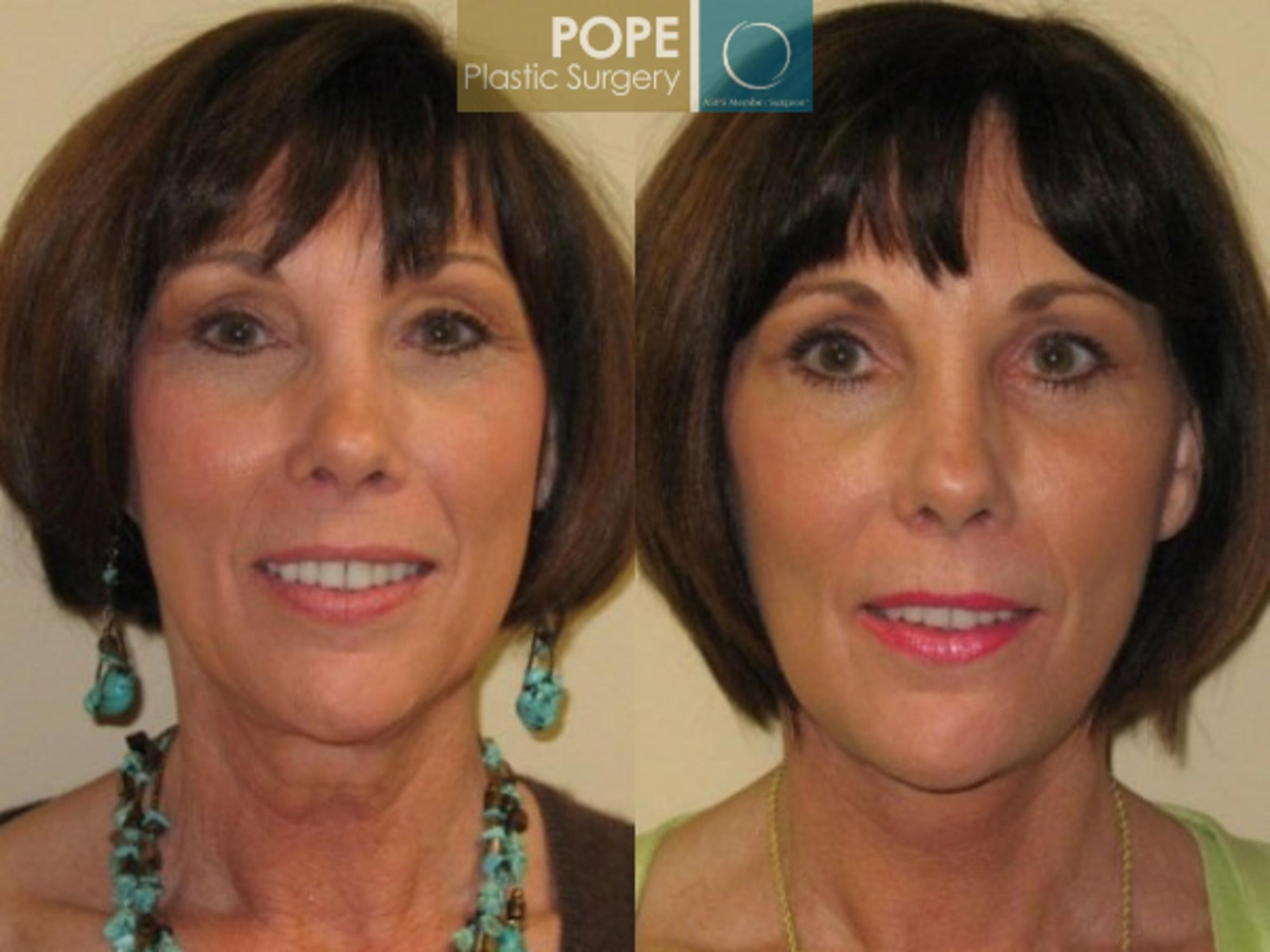 Facelift Case 72 Before & After View #1 | Orlando, FL | Pope Plastic Surgery