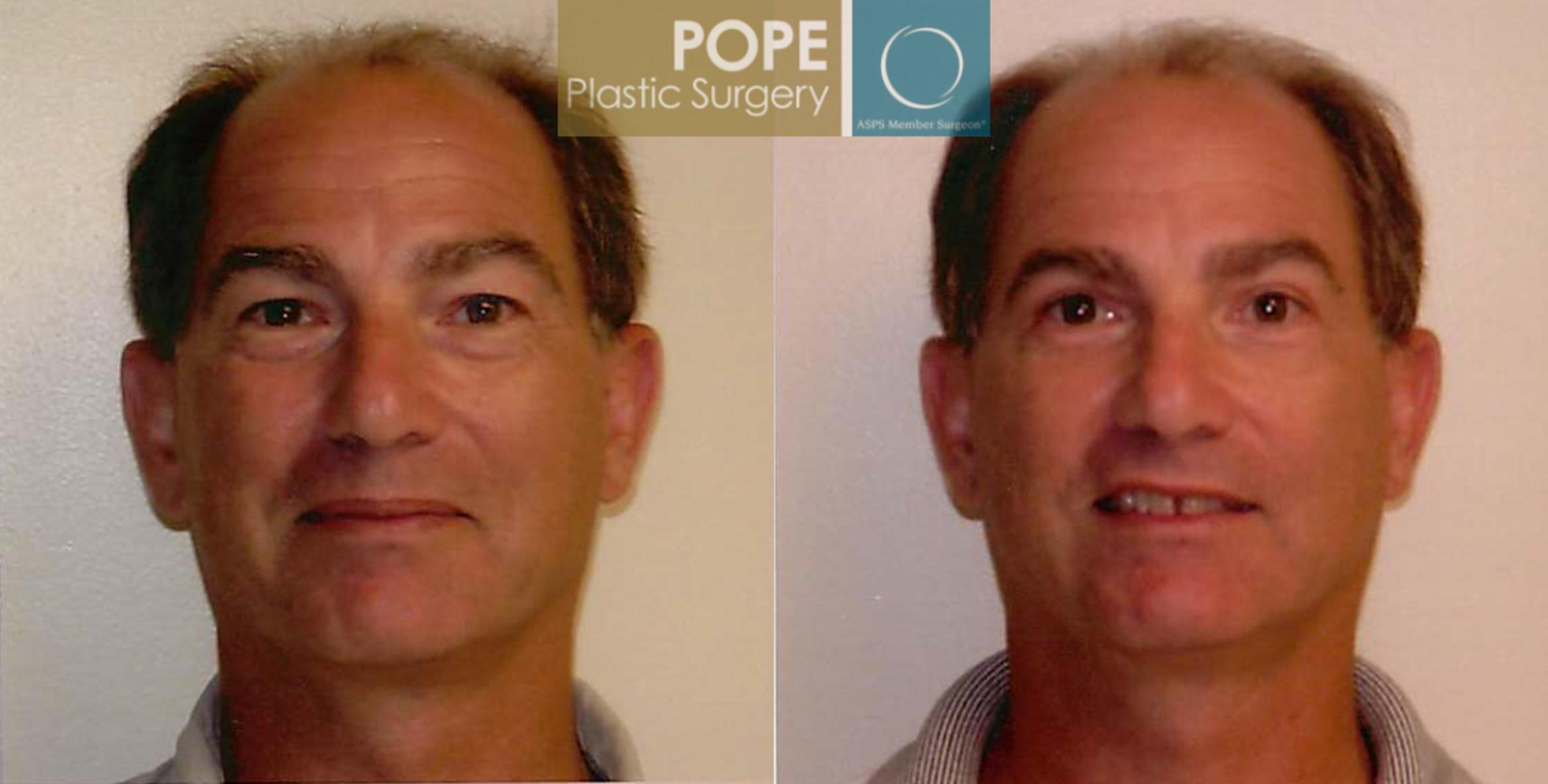 Facial Procedures for Men Case 104 Before & After View #1 | Orlando, FL | Pope Plastic Surgery