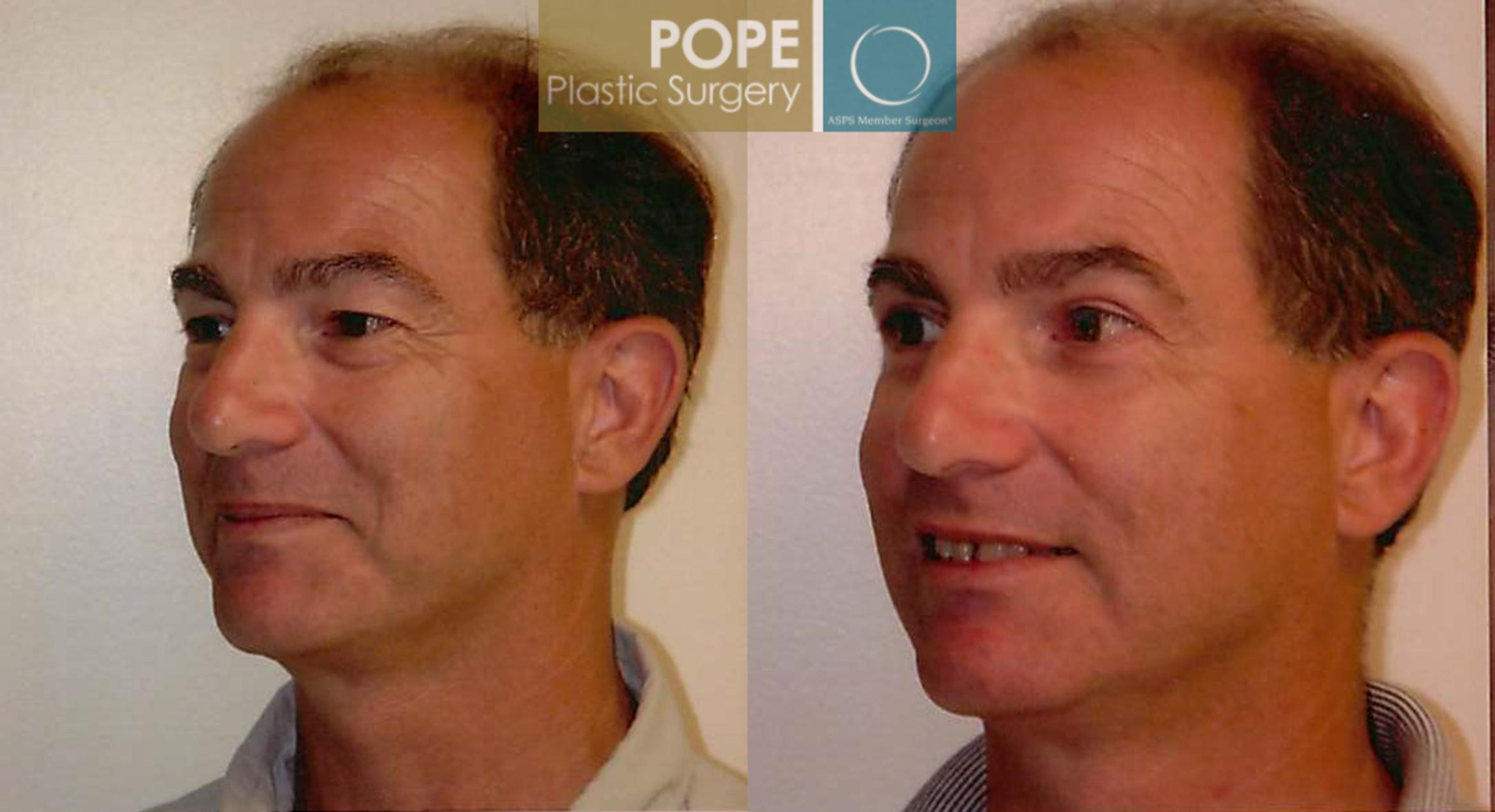 Facial Procedures for Men Case 104 Before & After View #2 | Orlando, FL | Pope Plastic Surgery