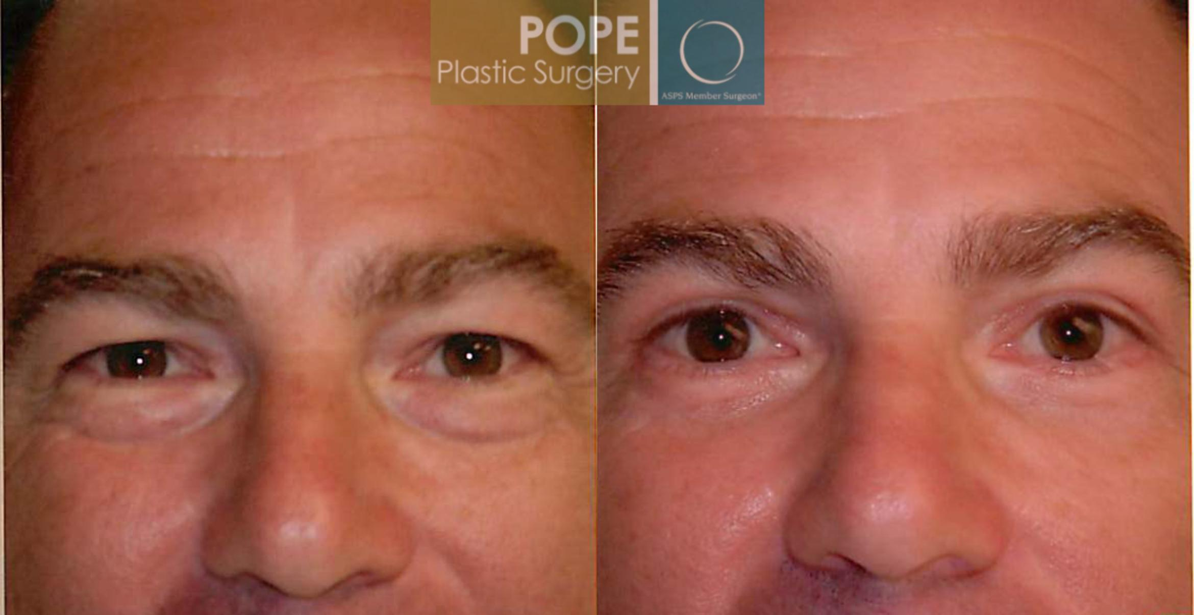 Facial Procedures for Men Case 104 Before & After View #3 | Orlando, FL | Pope Plastic Surgery
