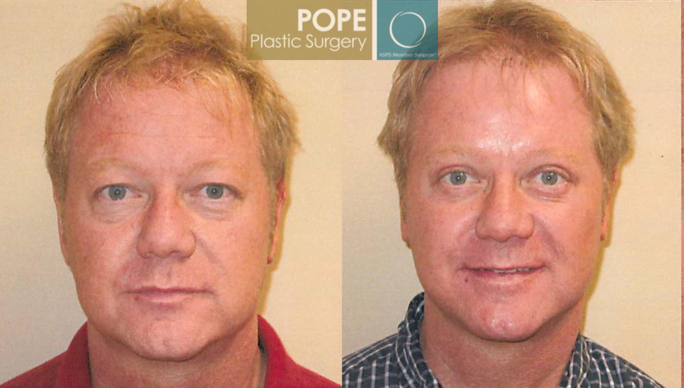 Facial Procedures for Men Case 105 Before & After View #1 | Orlando, FL | Pope Plastic Surgery