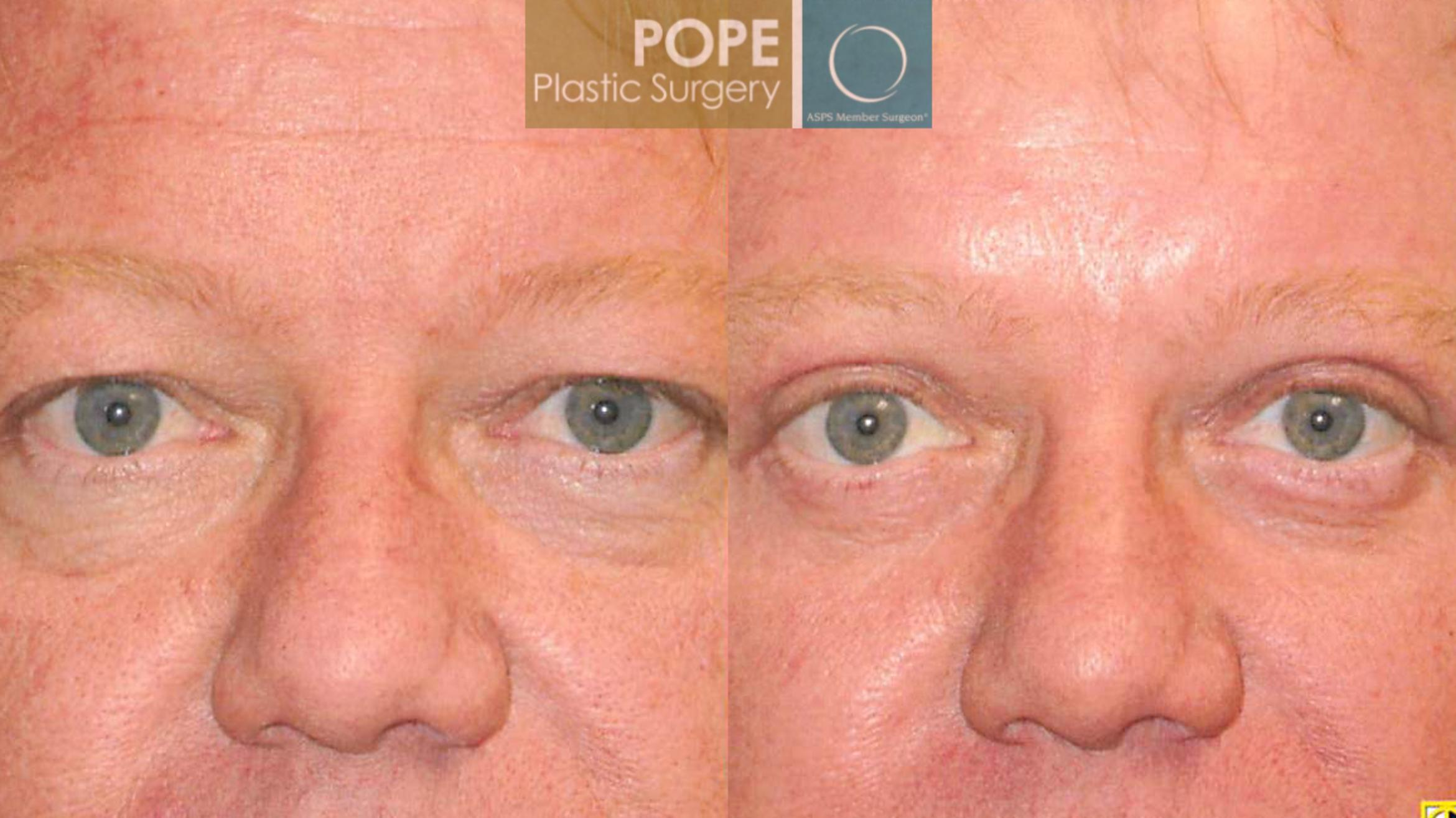 Facial Procedures for Men Case 105 Before & After View #3 | Orlando, FL | Pope Plastic Surgery