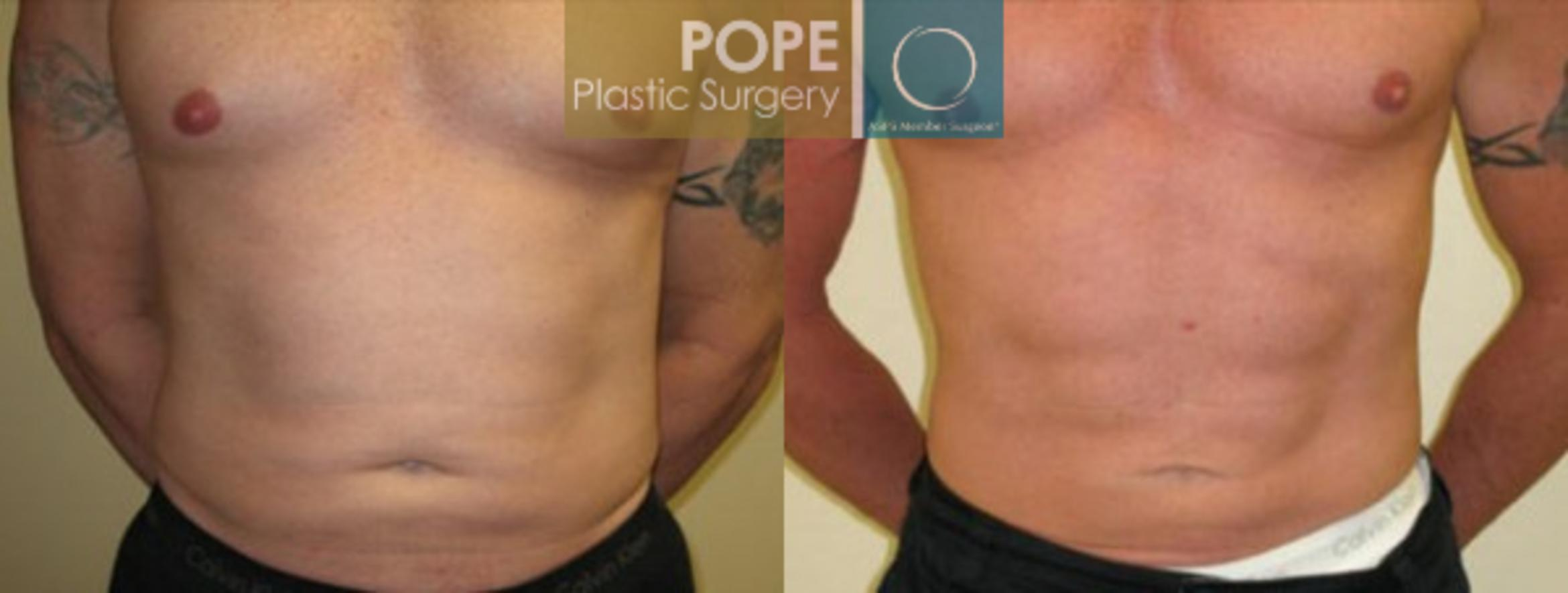 Liposuction Case 57 Before & After View #1 | Orlando, FL | Pope Plastic Surgery