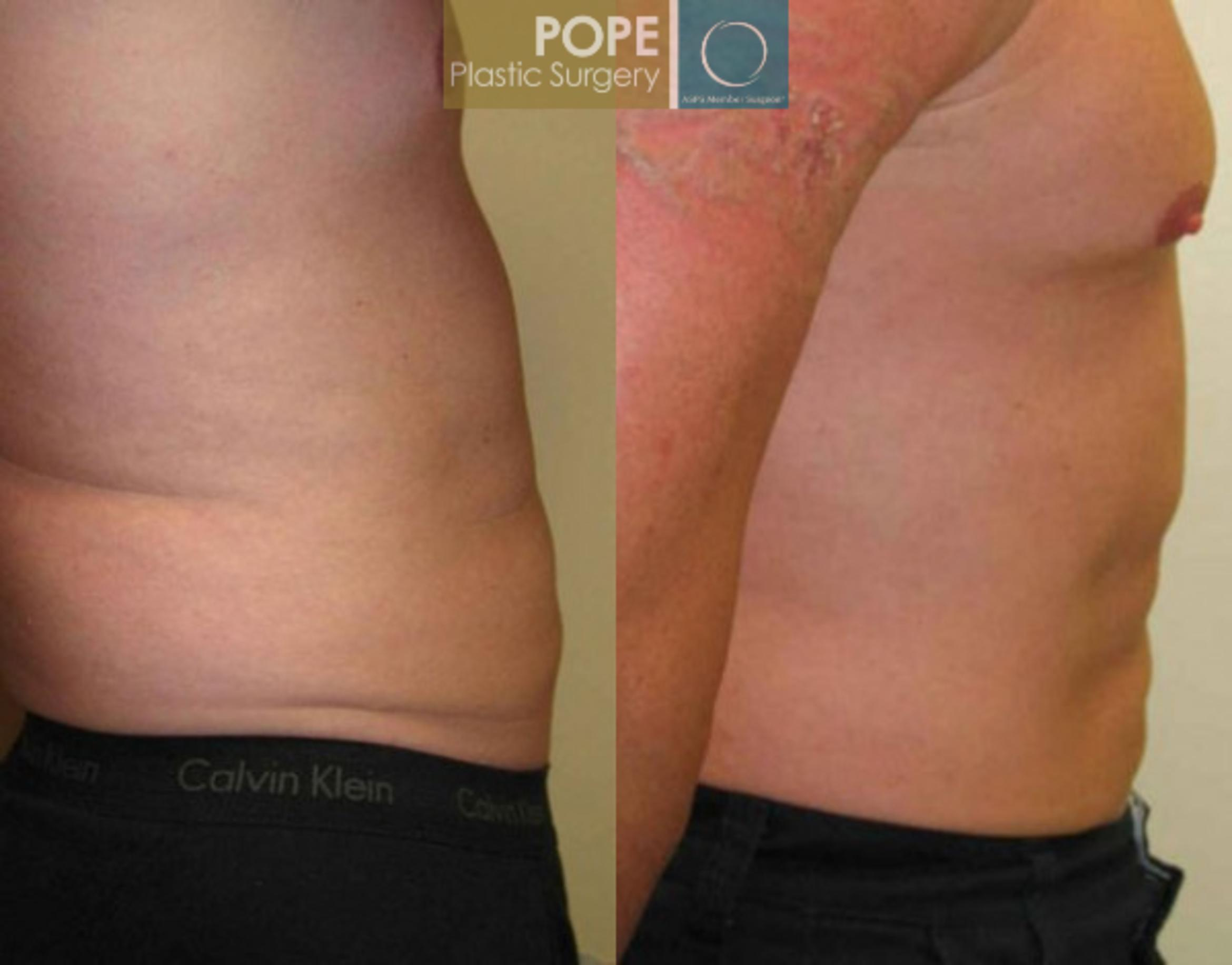 Liposuction Case 57 Before & After View #3 | Orlando, FL | Pope Plastic Surgery