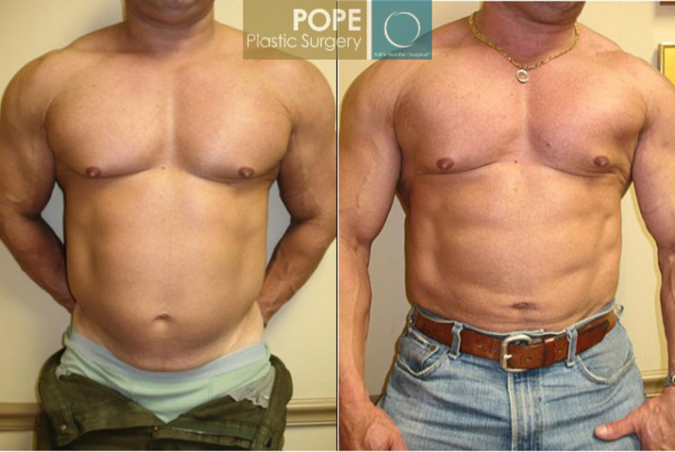 Liposuction Case 58 Before & After View #1 | Orlando, FL | Pope Plastic Surgery