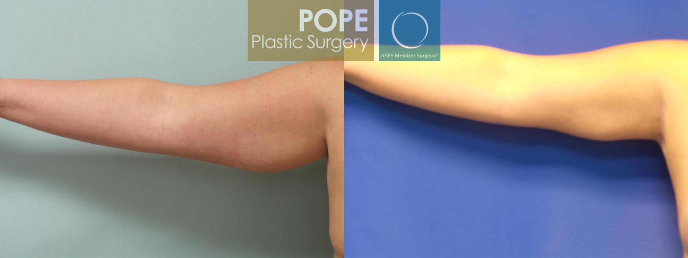 Liposuction In Orlando Fl Pope Plastic Surgery