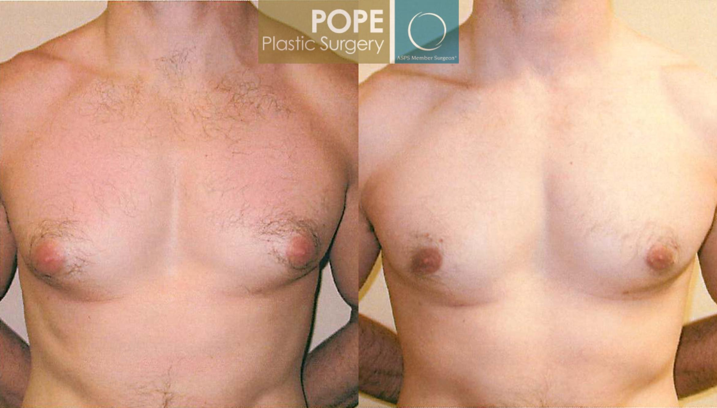 Male Breast Reduction Case 100 Before & After View #1 | Orlando, FL | Pope Plastic Surgery