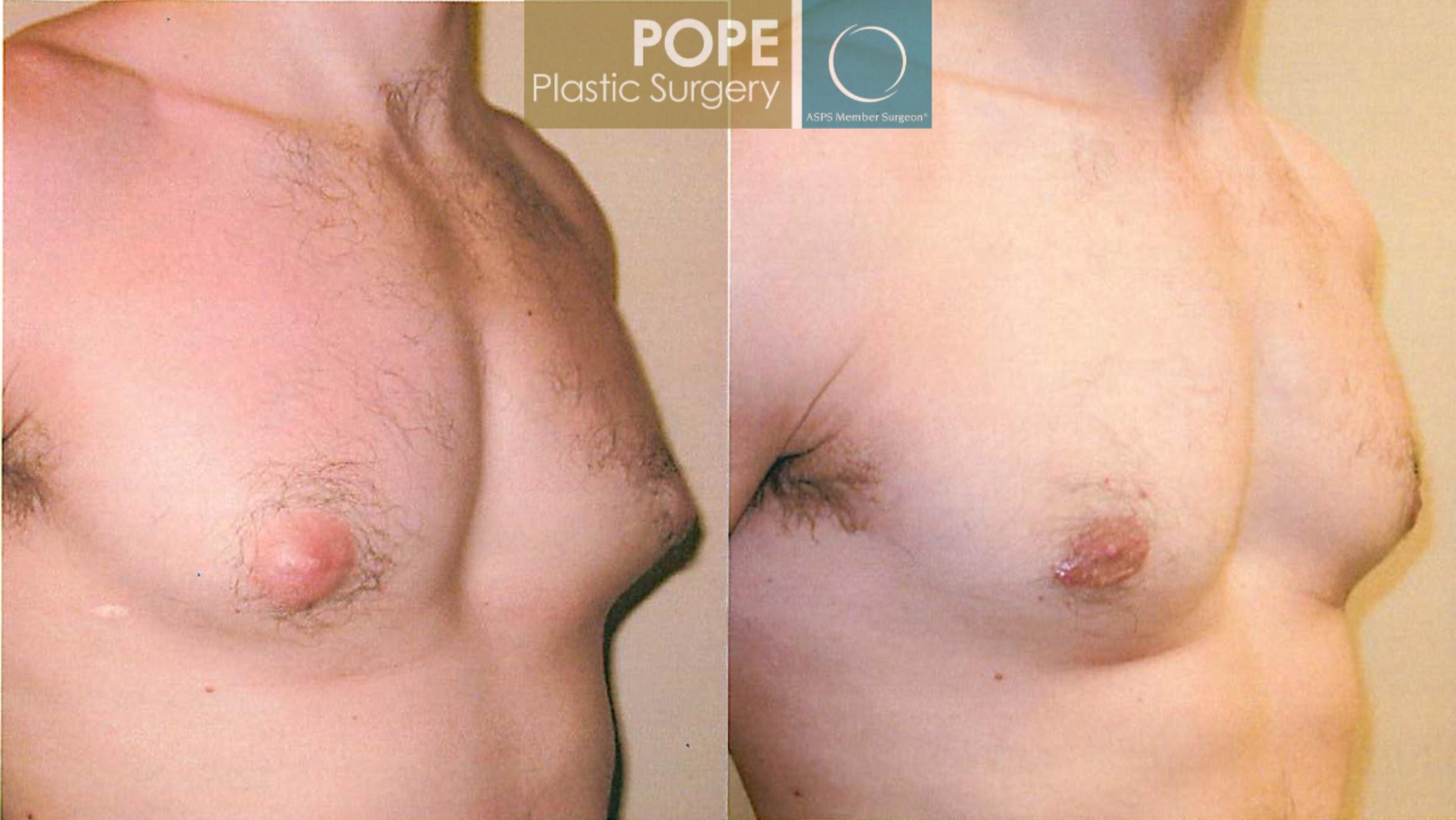 Male Breast Reduction Case 100 Before & After View #2 | Orlando, FL | Pope Plastic Surgery
