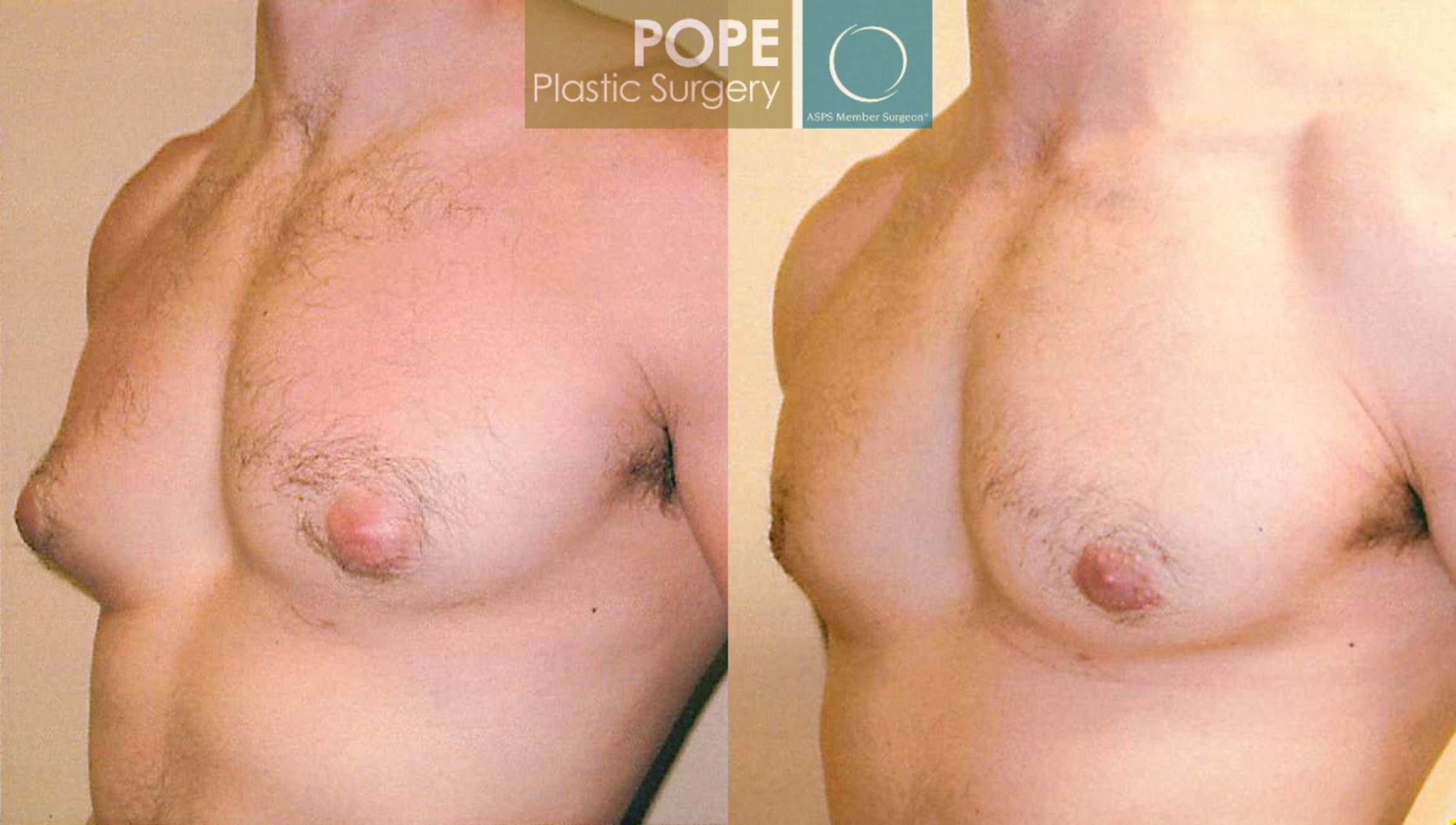 Male Breast Reduction Case 100 Before & After View #3 | Orlando, FL | Pope Plastic Surgery