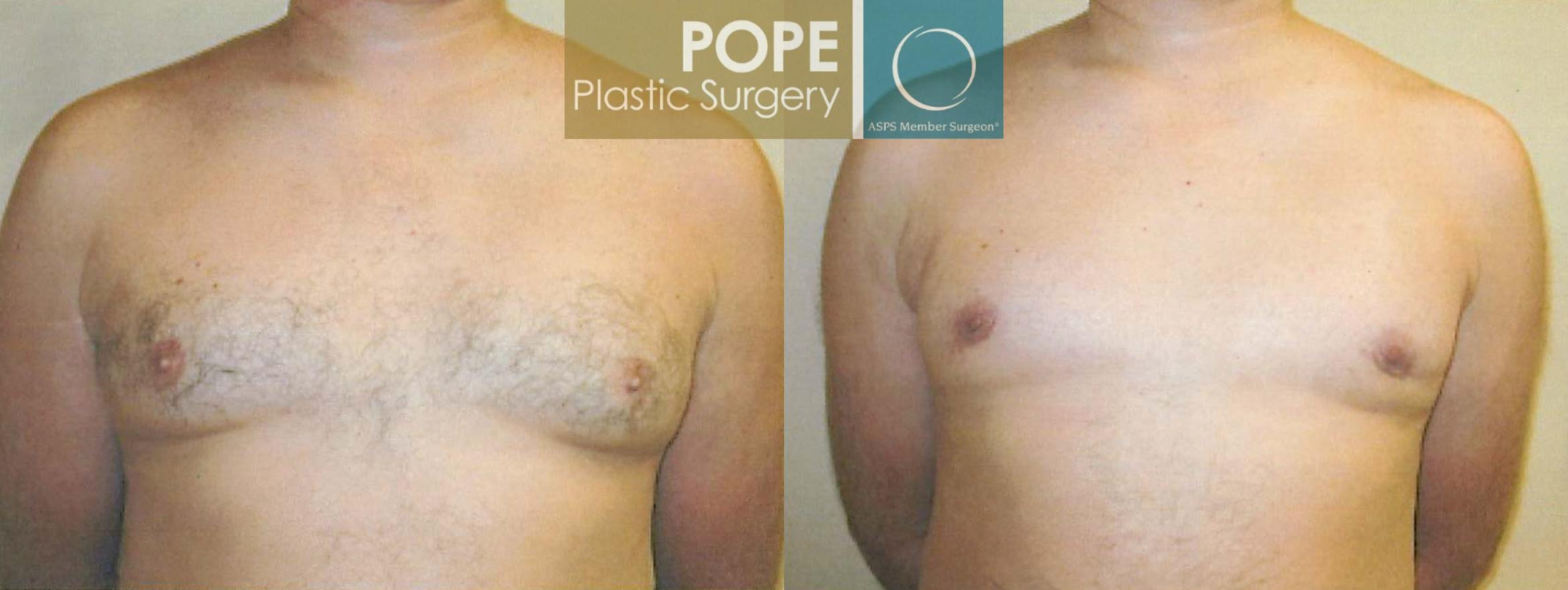 Male Breast Reduction Case 102 Before & After View #1 | Orlando, FL | Pope Plastic Surgery