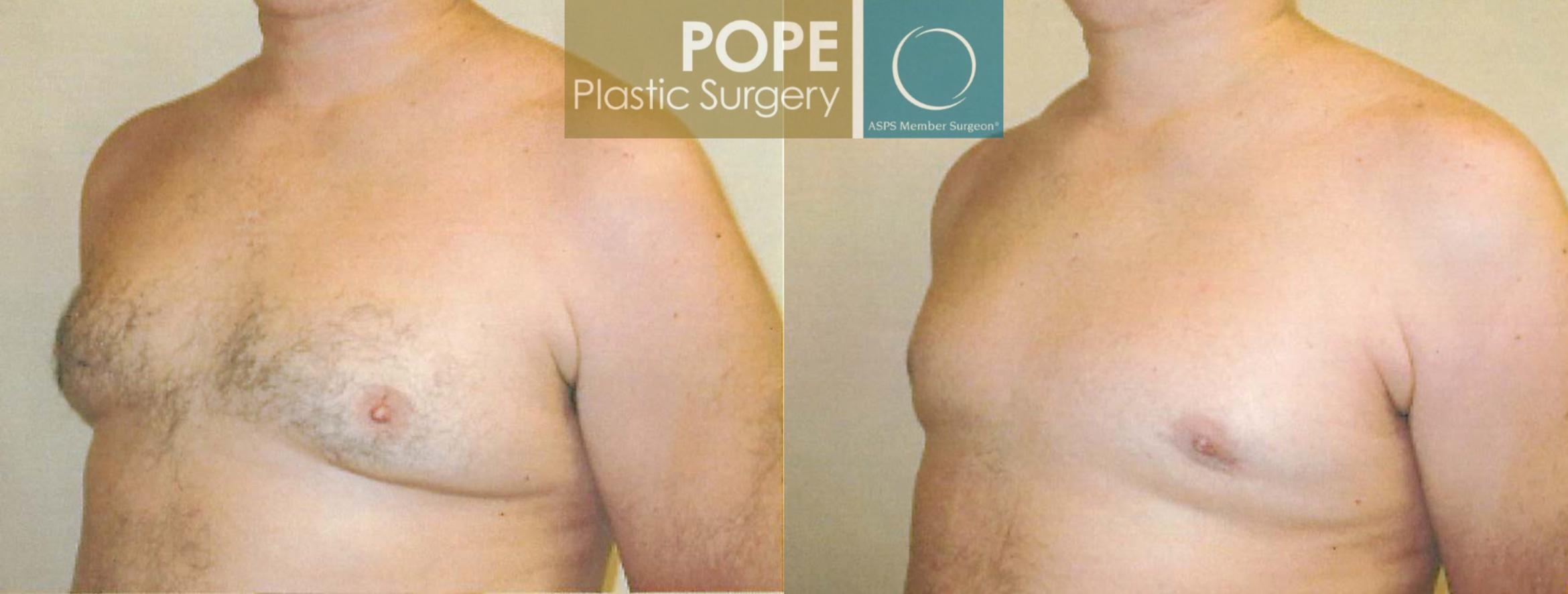 Male Breast Reduction Case 102 Before & After View #2 | Orlando, FL | Pope Plastic Surgery