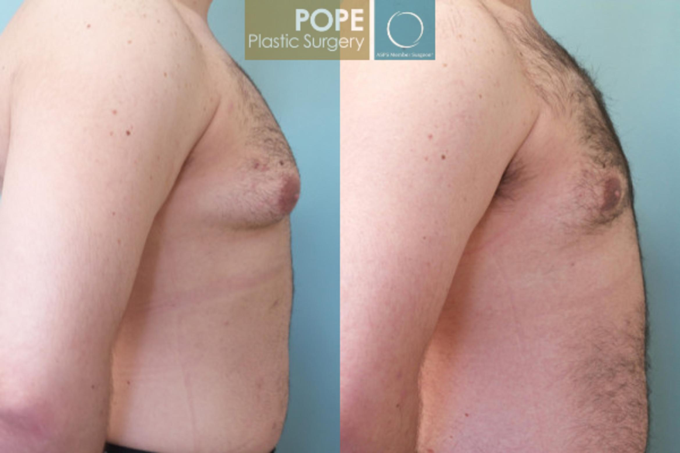 Male Breast Reduction Case 53 Before & After View #4 | Orlando, FL | Pope Plastic Surgery