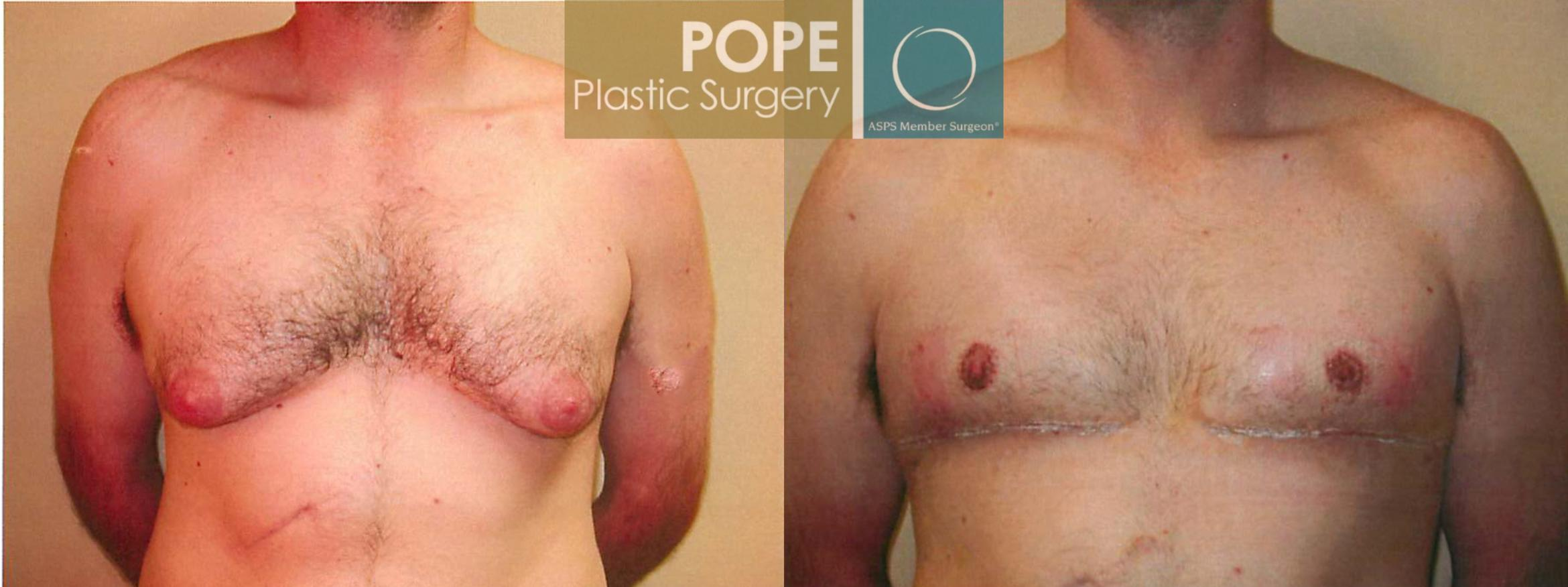 Male Breast Reduction Case 94 Before & After View #1 | Orlando, FL | Pope Plastic Surgery