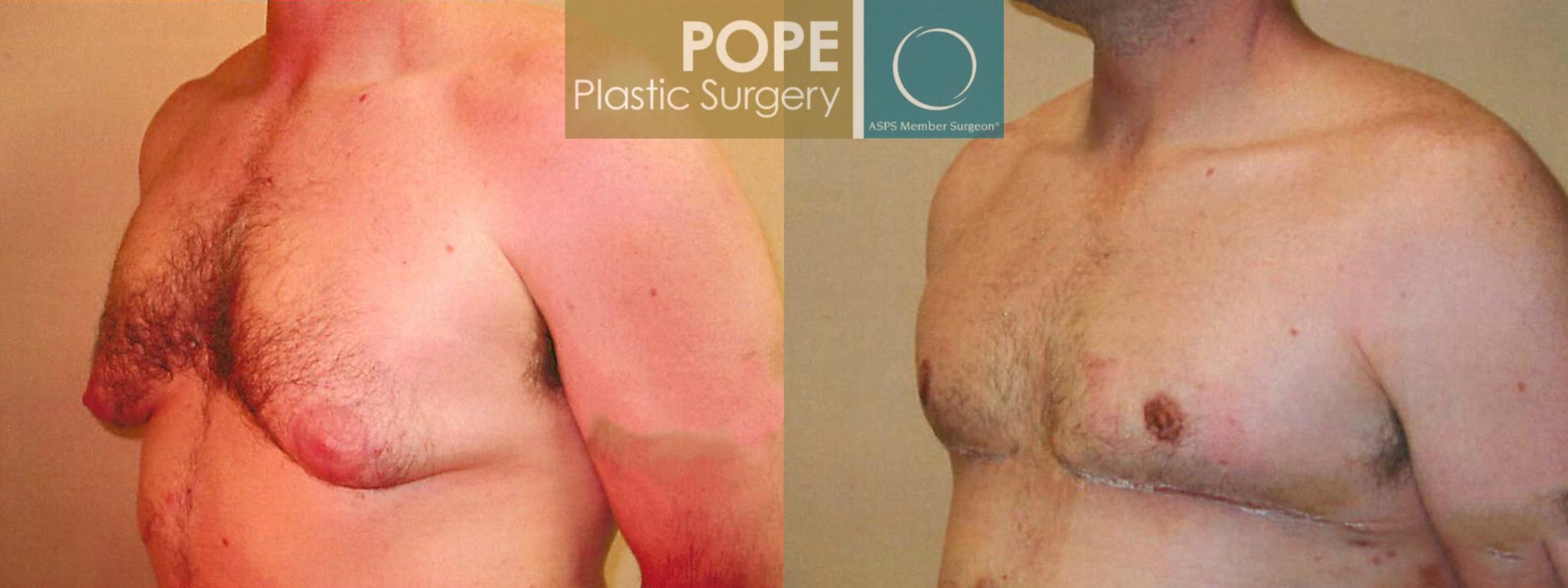 Male Breast Reduction Case 94 Before & After View #2 | Orlando, FL | Pope Plastic Surgery