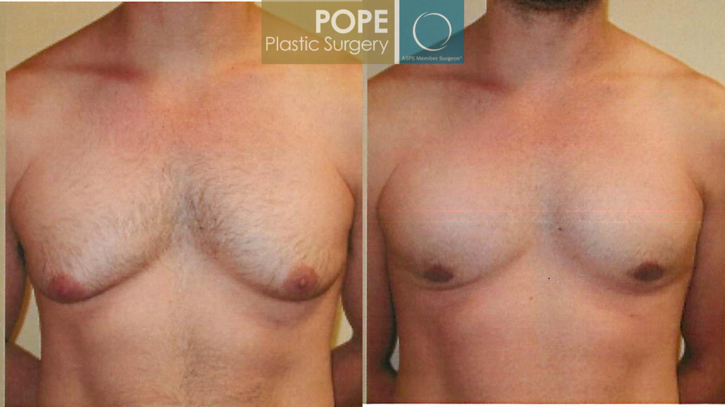Male Breast Reduction Case 95 Before & After View #1 | Orlando, FL | Pope Plastic Surgery