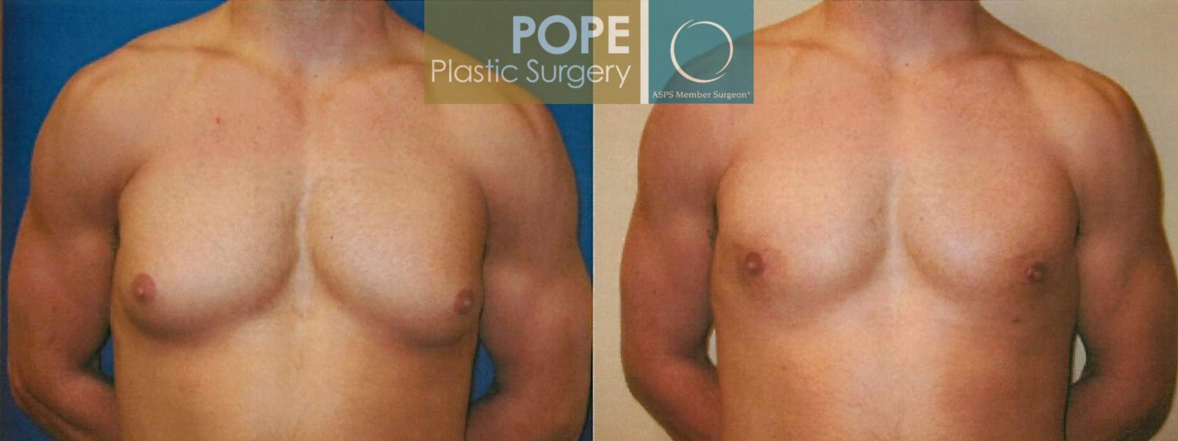 Male Breast Reduction Case 96 Before & After View #1 | Orlando, FL | Pope Plastic Surgery