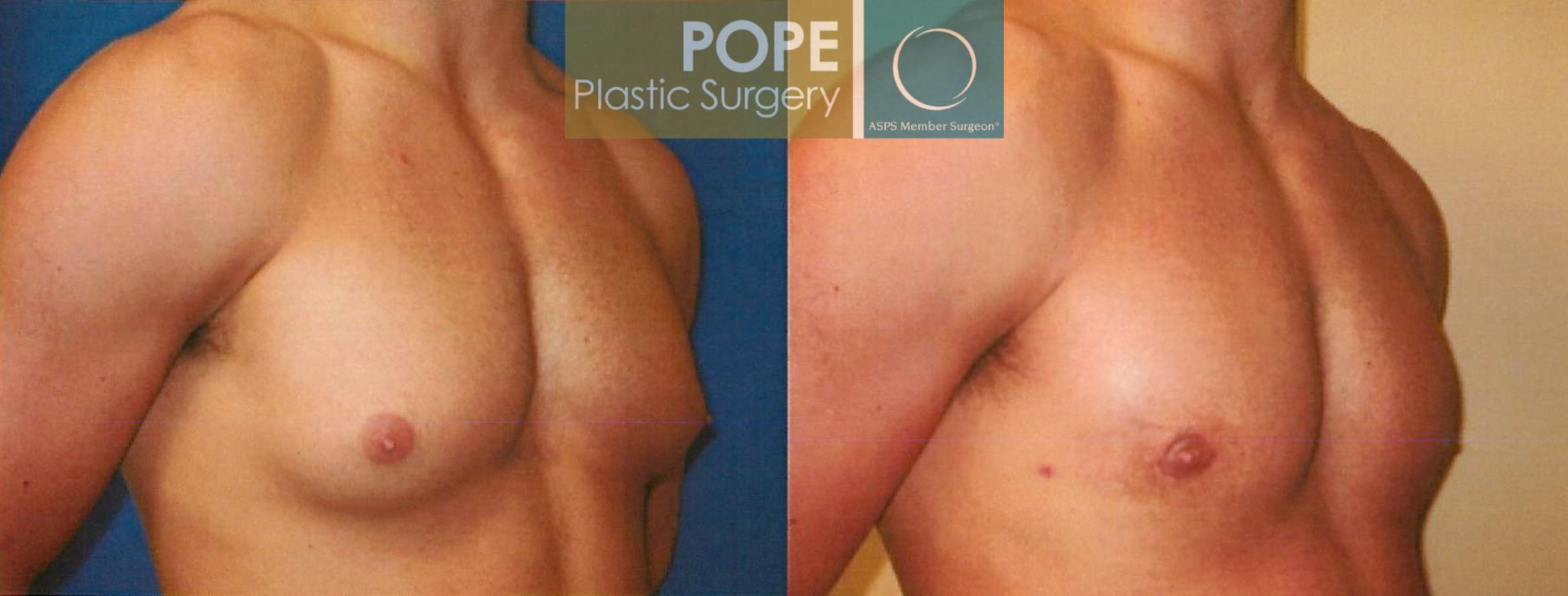 Male Breast Reduction Case 96 Before & After View #2 | Orlando, FL | Pope Plastic Surgery