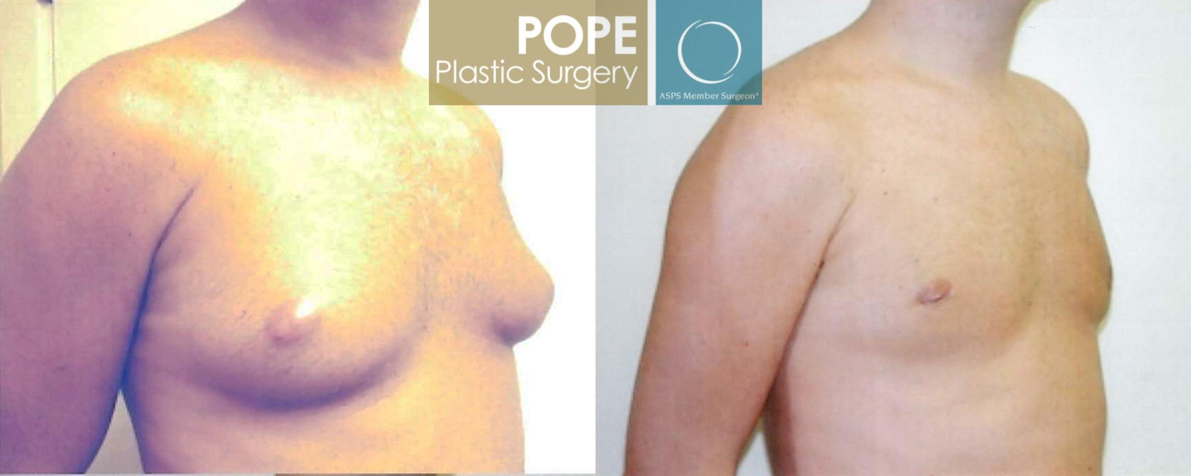 Male Breast Reduction Case 97 Before & After View #2 | Orlando, FL | Pope Plastic Surgery