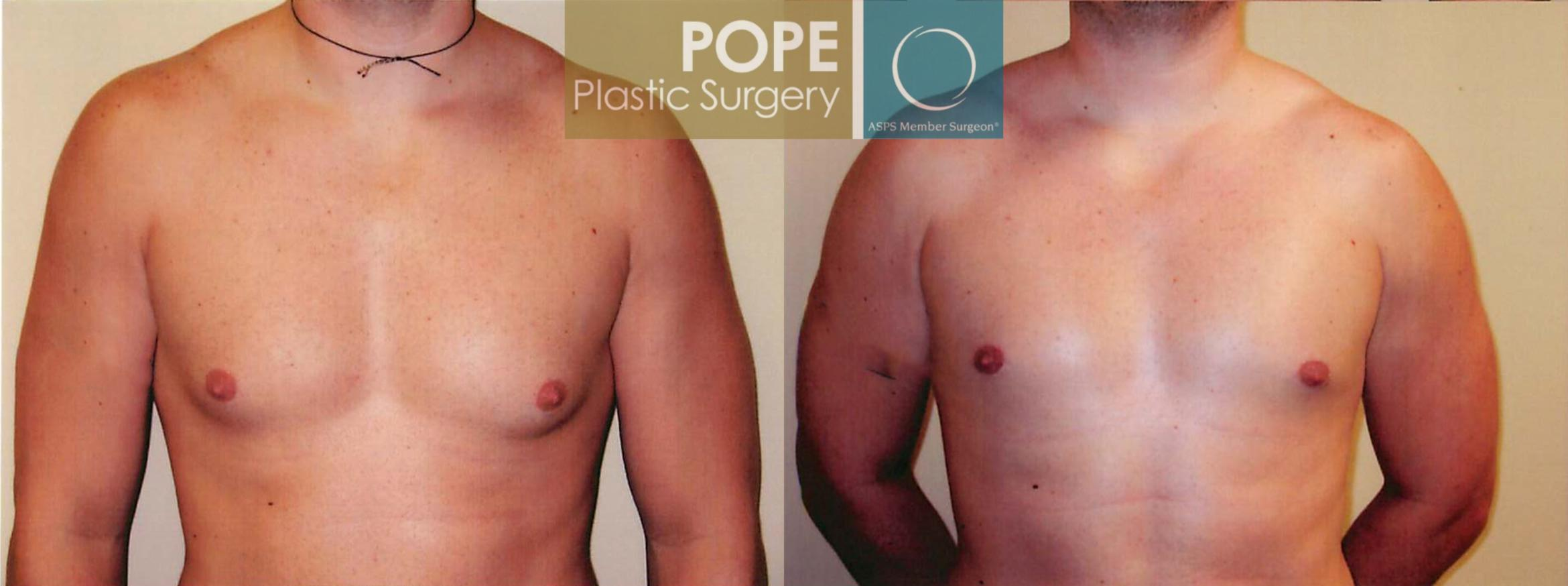 Male Breast Reduction Case 98 Before & After View #1 | Orlando, FL | Pope Plastic Surgery