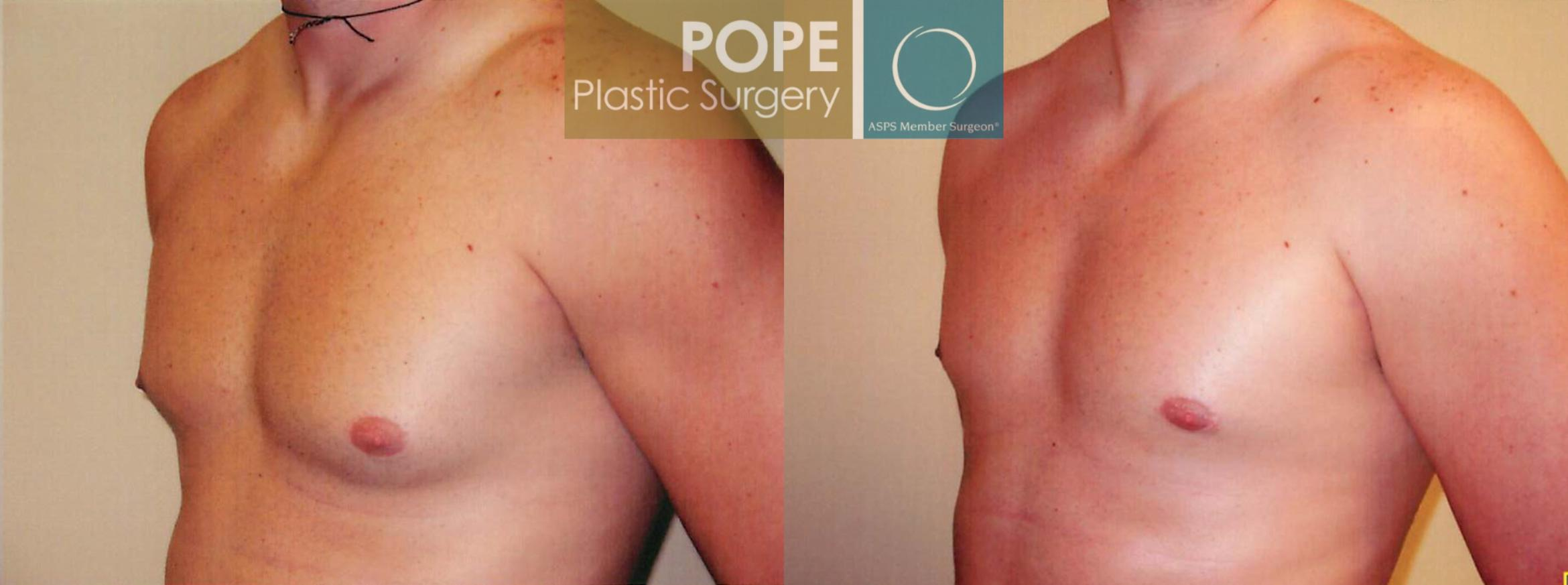 Male Breast Reduction Case 98 Before & After View #2 | Orlando, FL | Pope Plastic Surgery