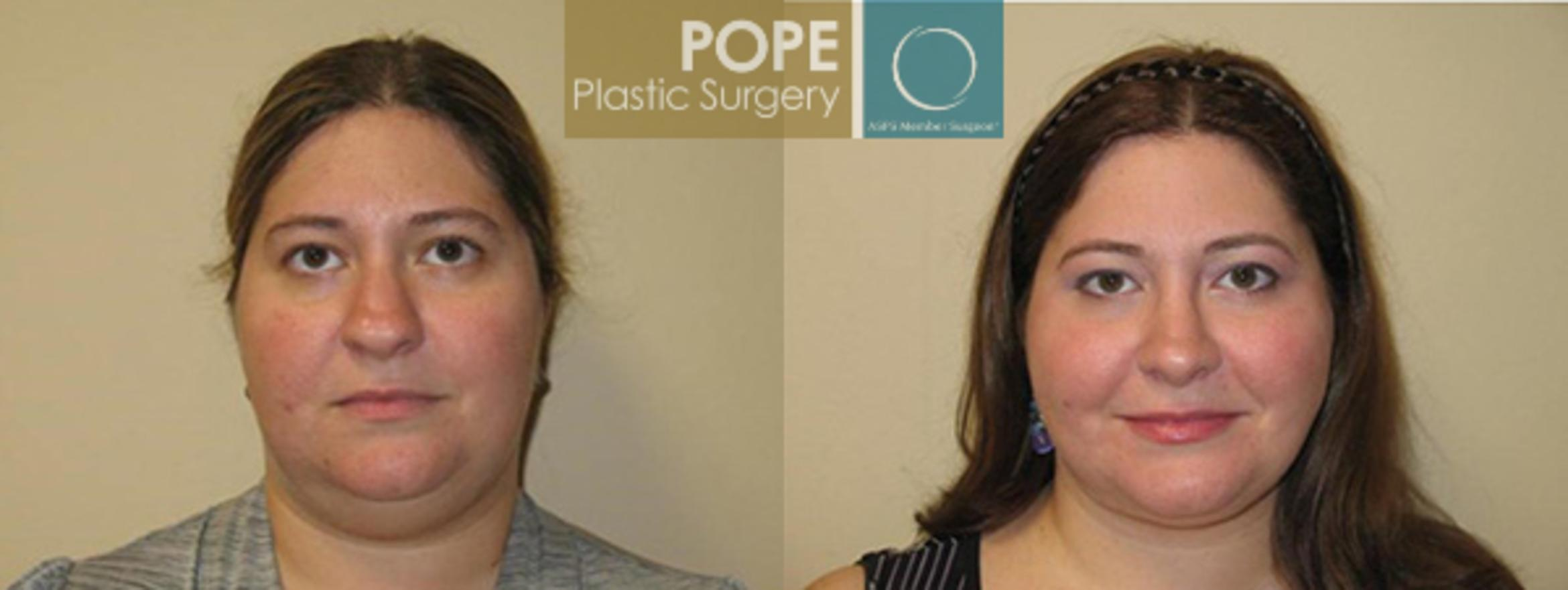 Rhinoplasty Case 177 Before & After View #1 | Orlando, FL | Pope Plastic Surgery