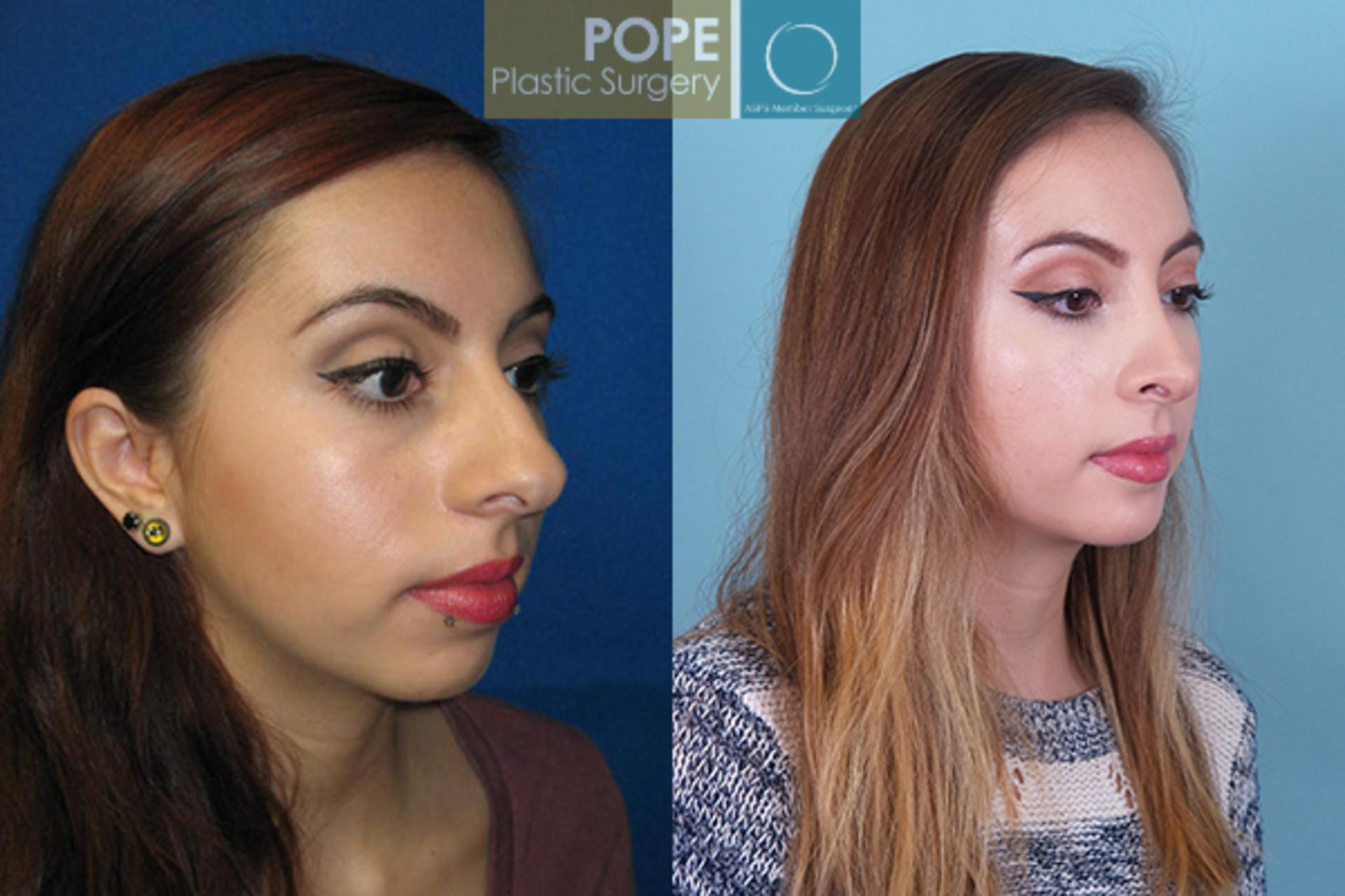 Rhinoplasty Case 29 Before & After View #1 | Orlando, FL | Pope Plastic Surgery