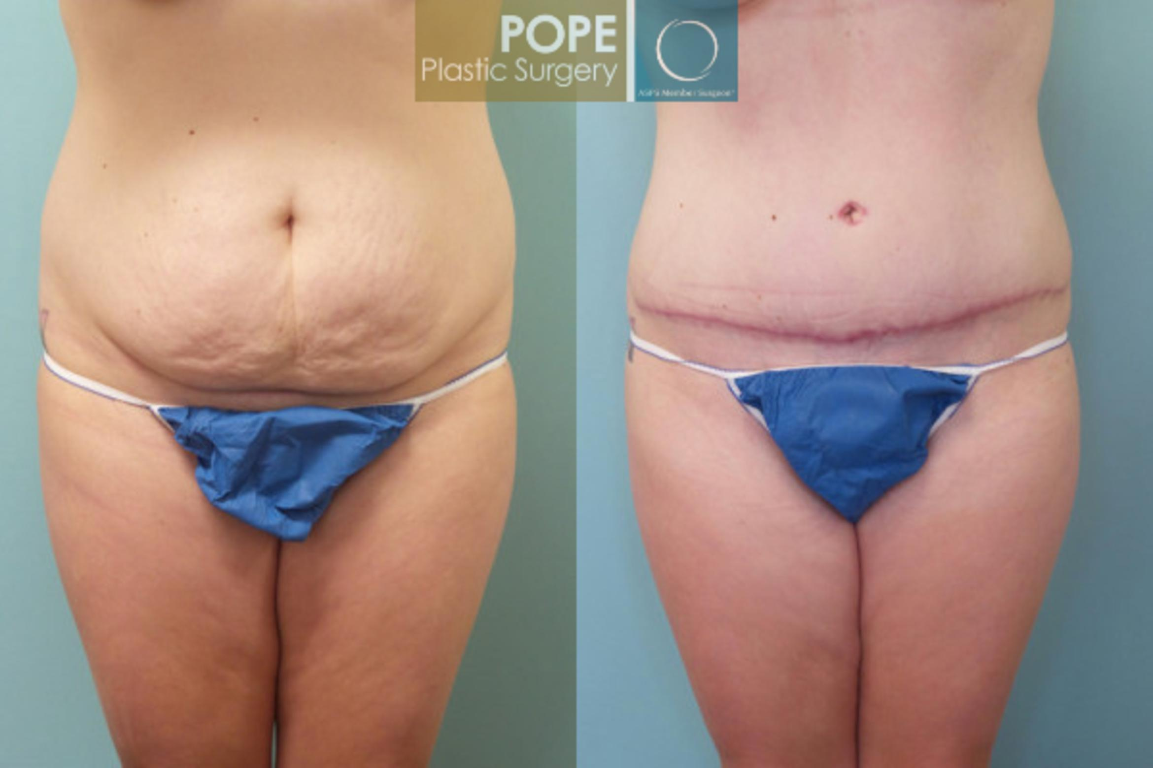 Tummy Tuck Case 107 Before & After View #1 | Orlando, FL | Pope Plastic Surgery